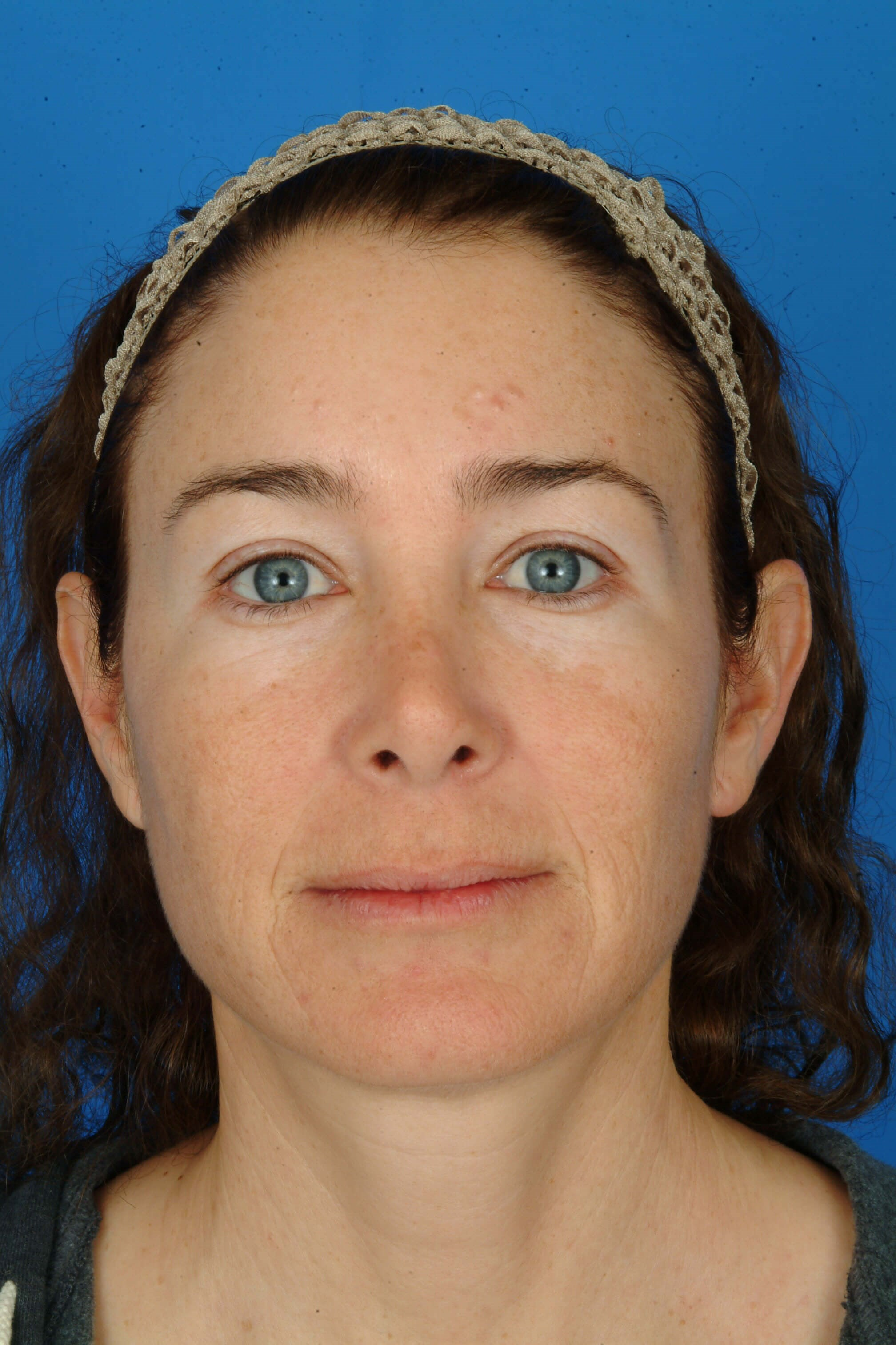 Front View Before Laser Skin Resurfacing