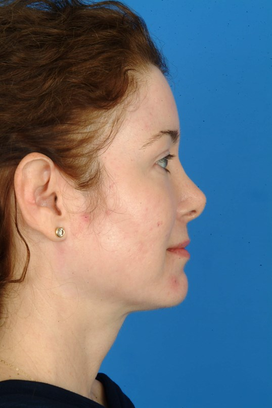 Profile View 5 Months Post Procedure