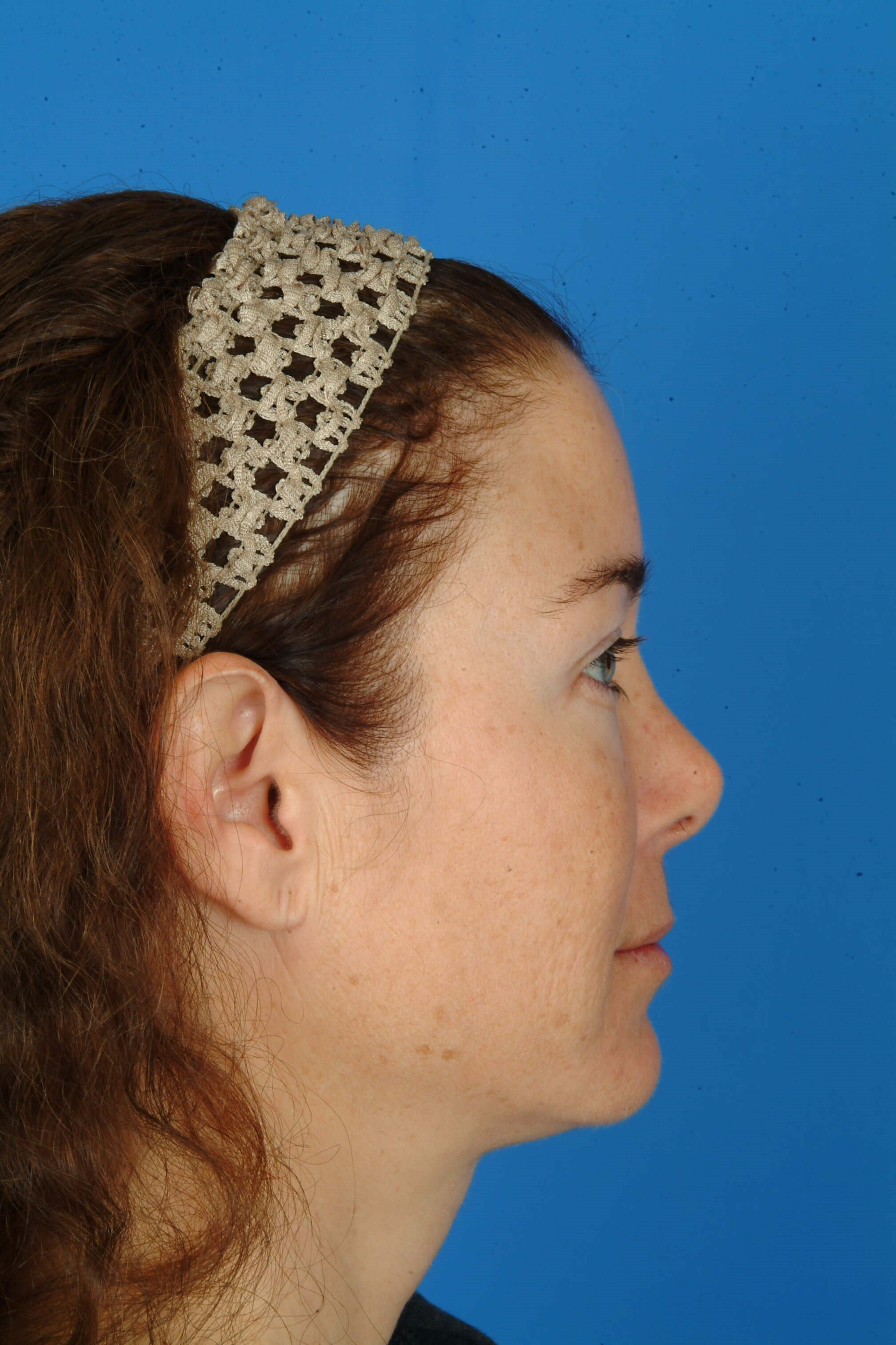 Profile View Before Laser Skin Resurfacing