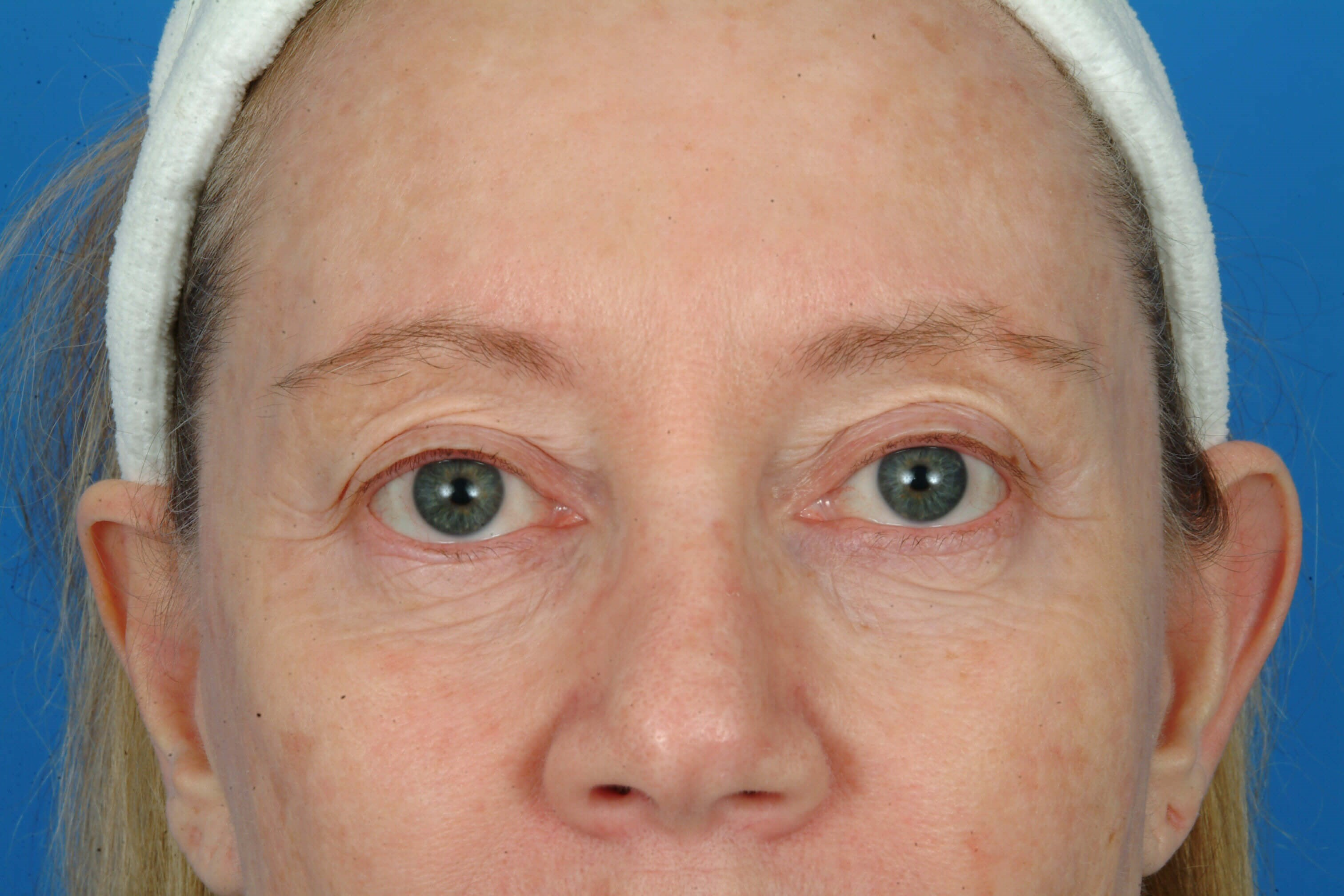 Close Up Before Laser Skin Resurfacing