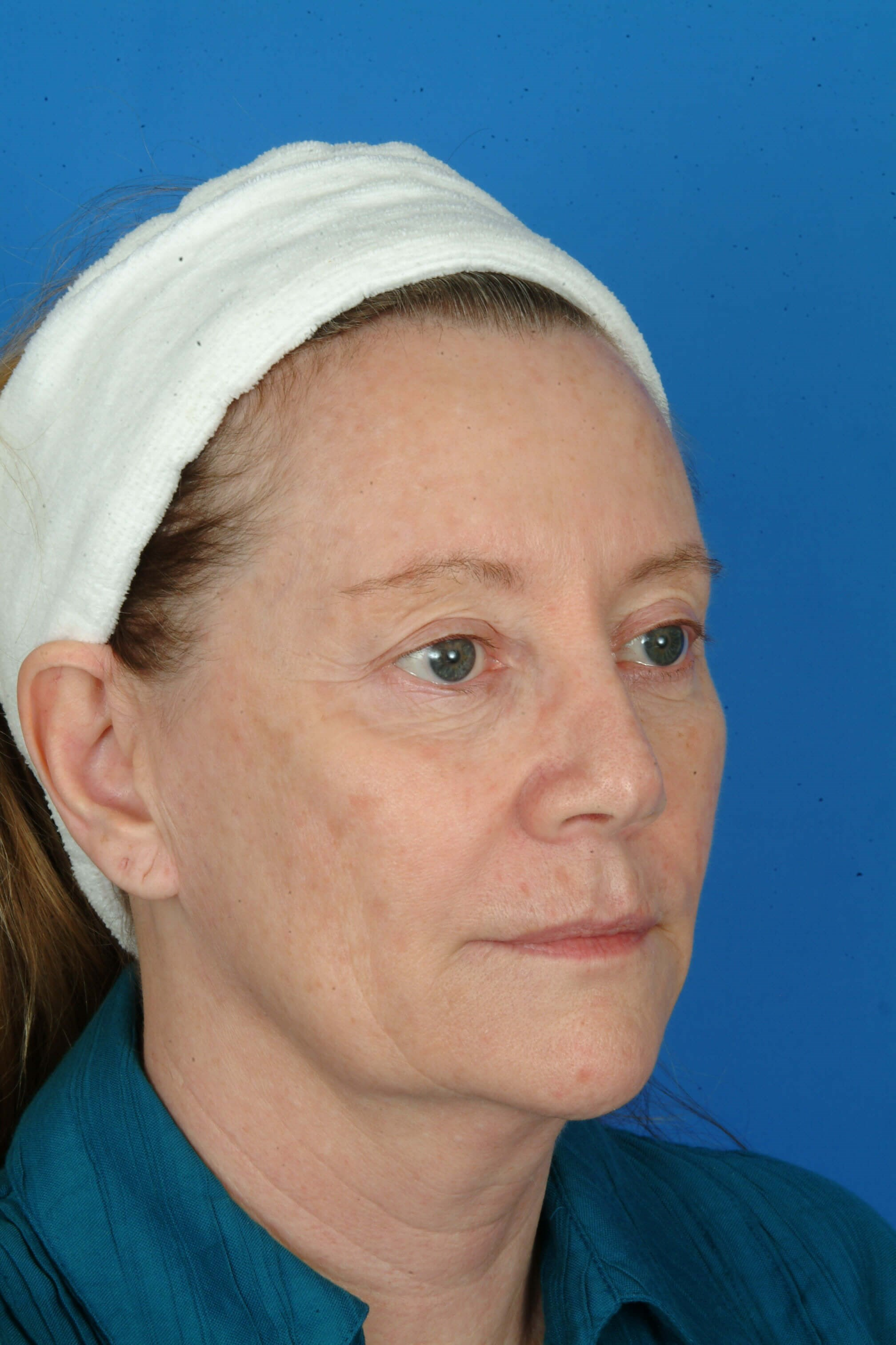 Three Quarter View Before Laser Skin Resurfacing
