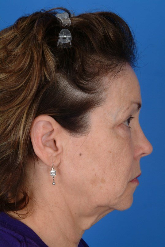 Facelift, Browlift, Eyelid Surgery, and Regional Laser
