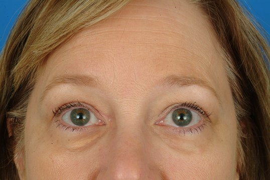 Close Up Before Eyelid Surgery