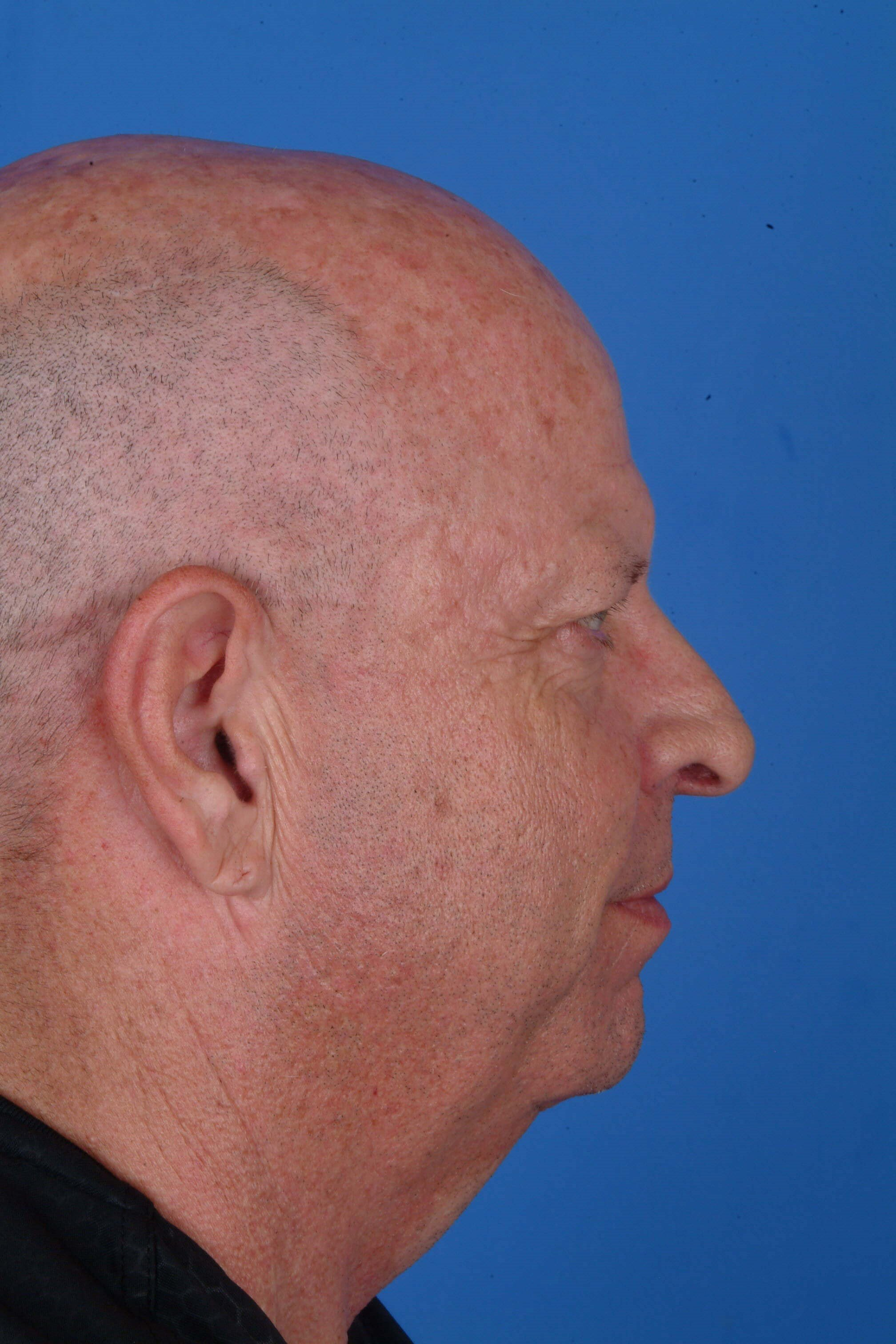 Profile View Before Surgery with Dr. Kridel