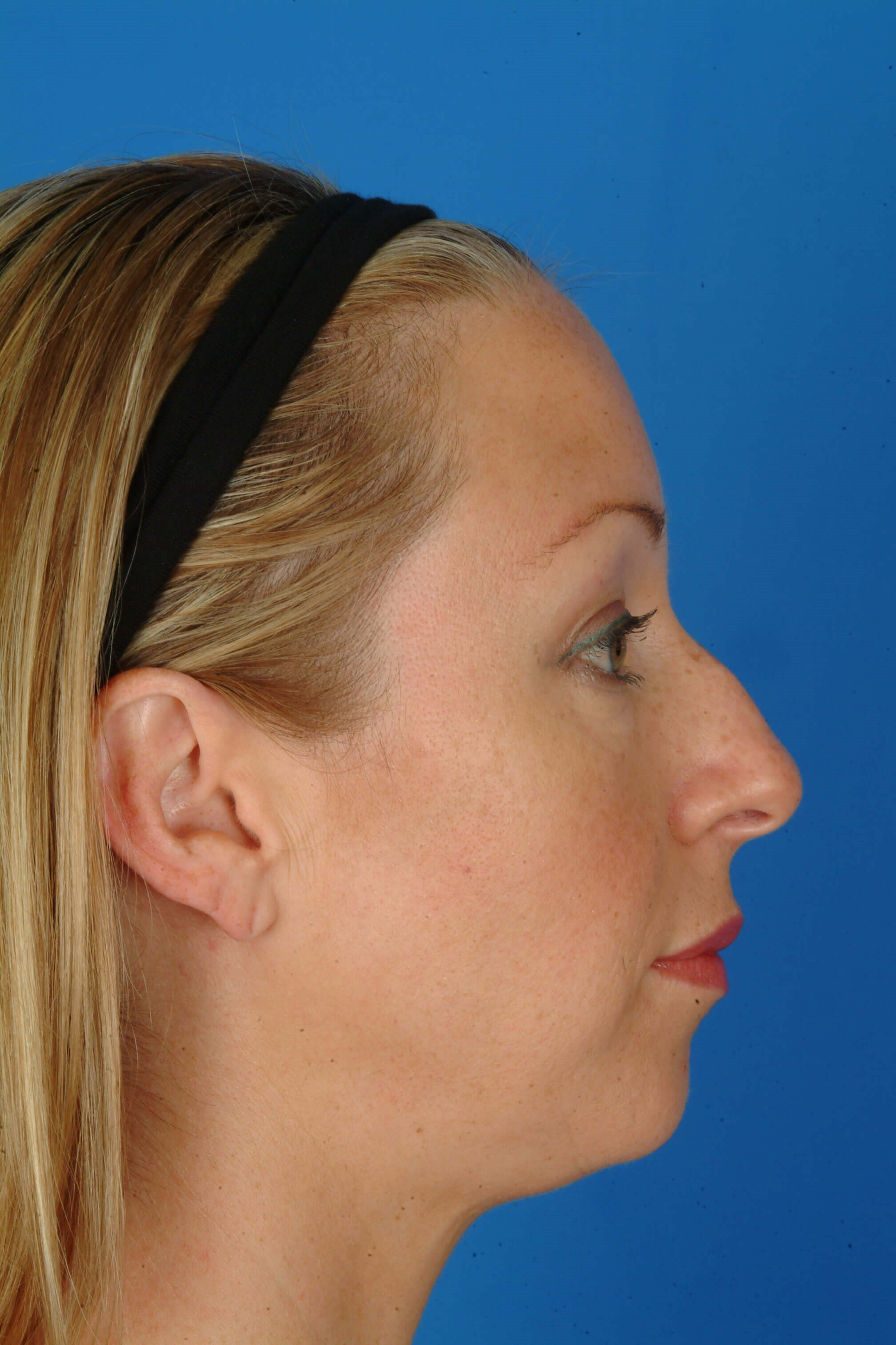 Profile View Before Surgery