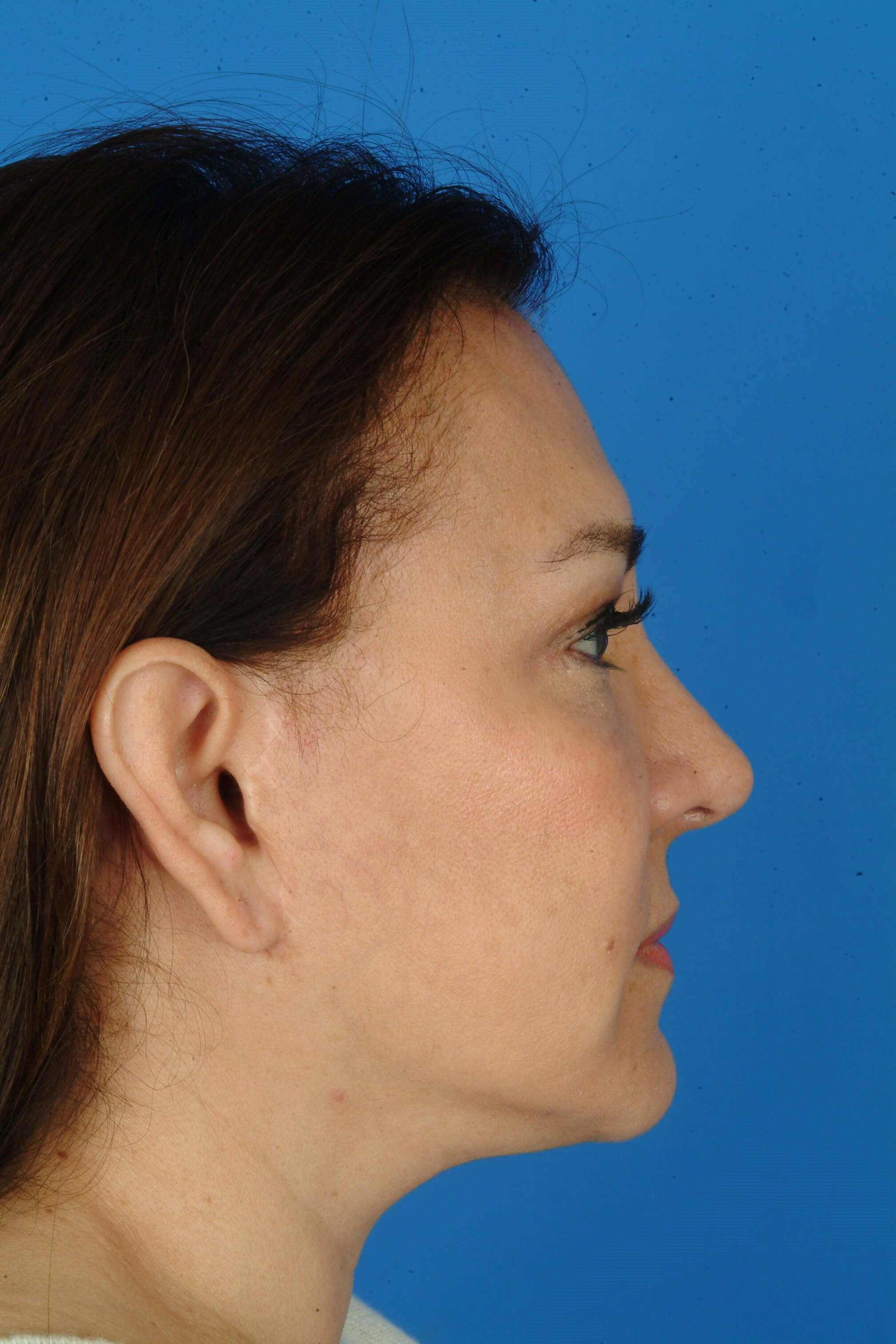 Profile View Seven Years Post-Operatively