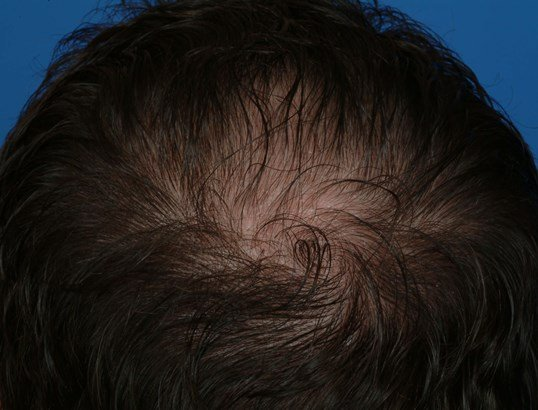 Back View 7 mos post-op Micrograft Hair