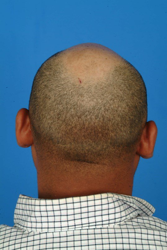 Back View Before: Otoplasty Ear Pinning