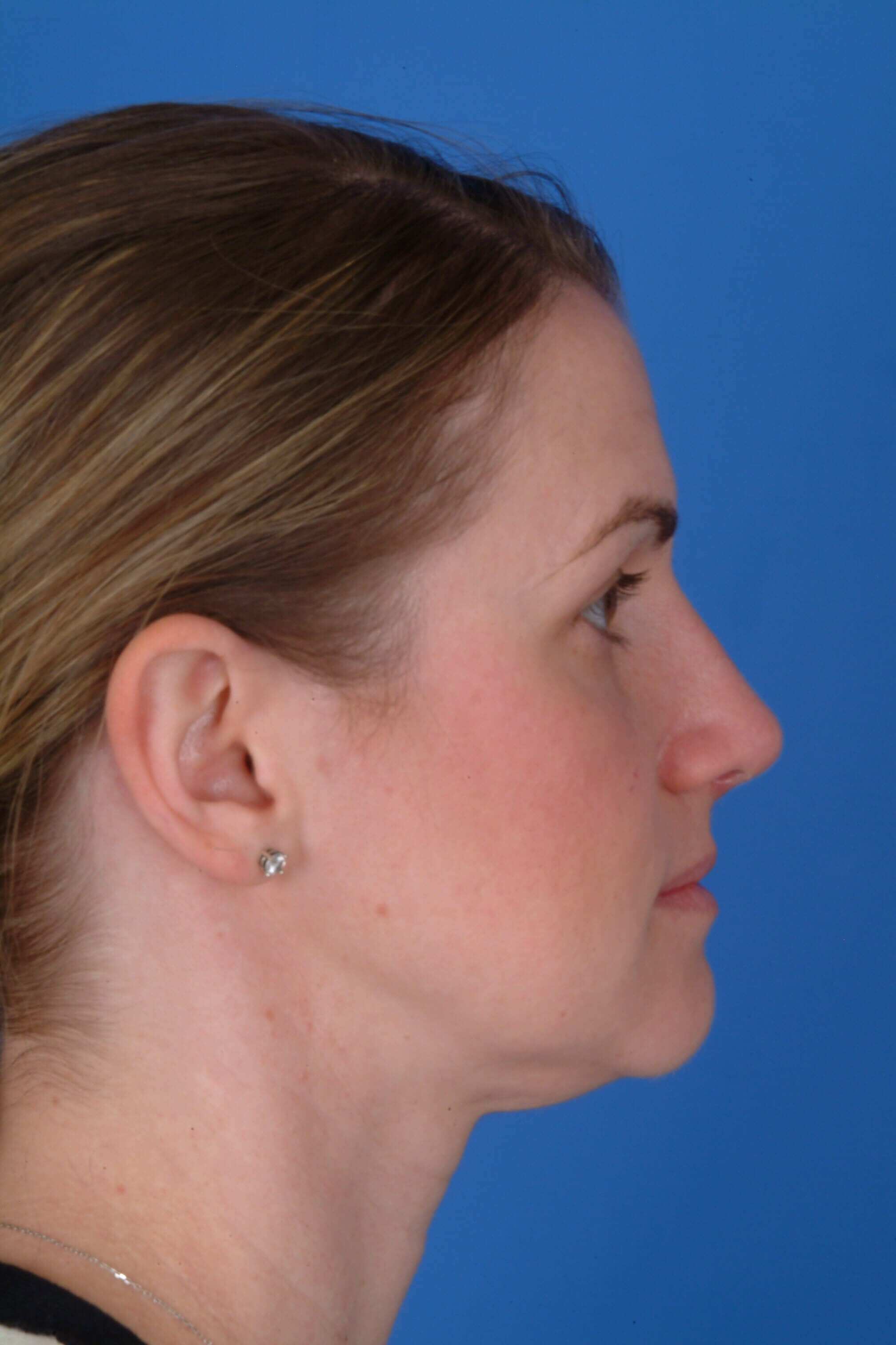 Side View 1 mo Post-Op Rhinoplasty