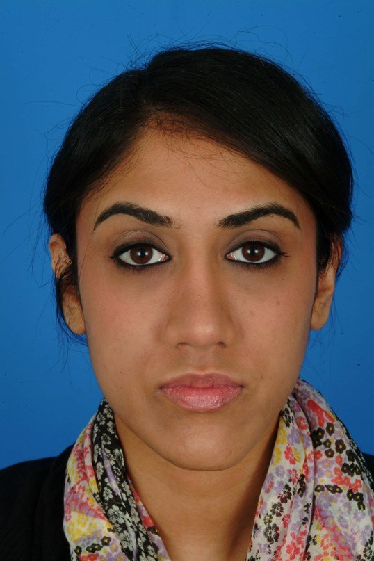 Front View 6 Months After Rhinoplasty