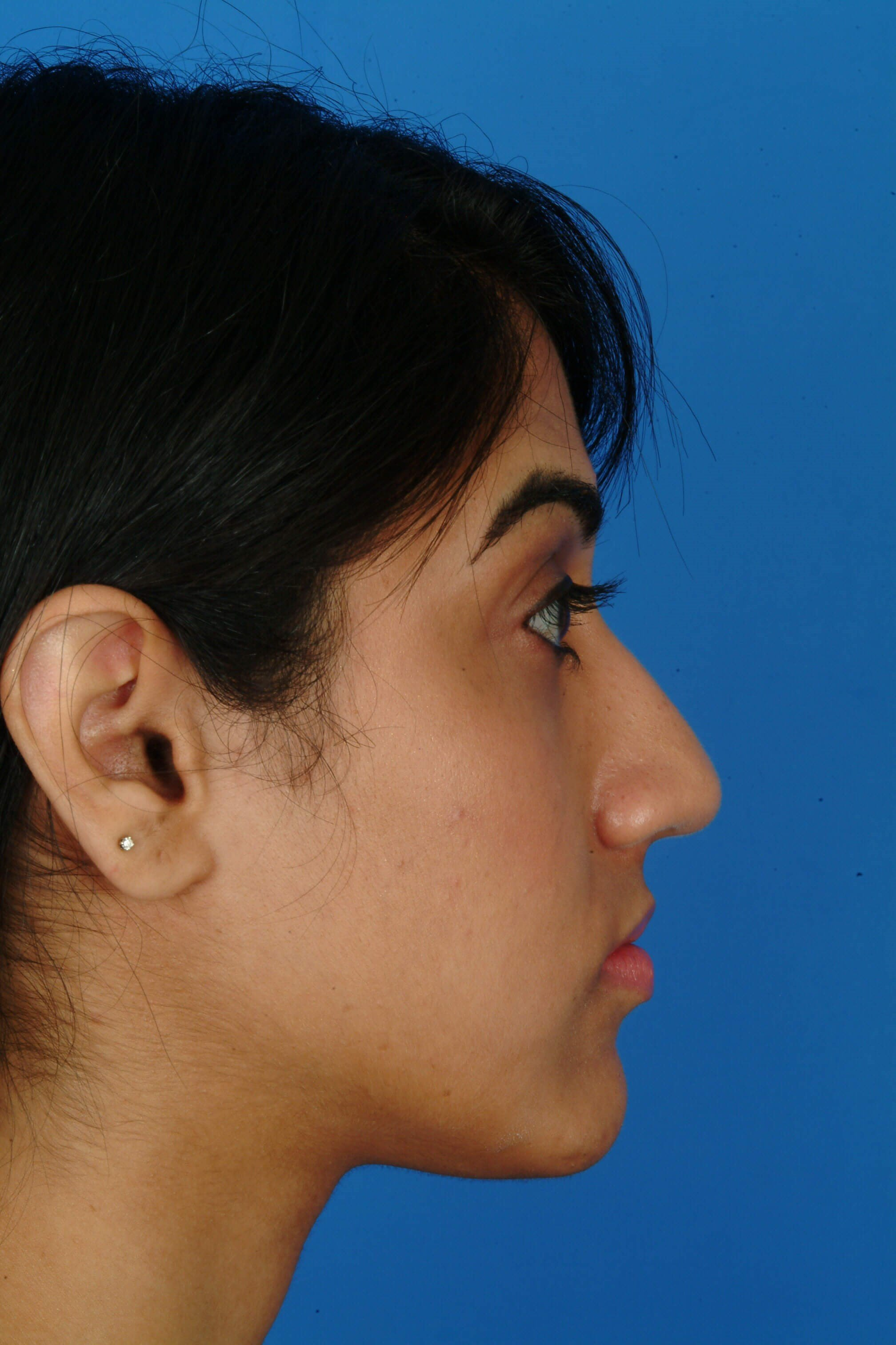 Profile View Before Ethnic Rhinoplasty