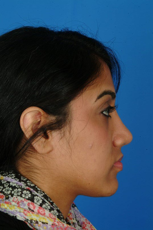 Profile View 6 Months After Rhinoplasty