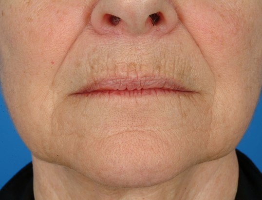 Close-up Mouth Before: CO2 Laser Resurfacing