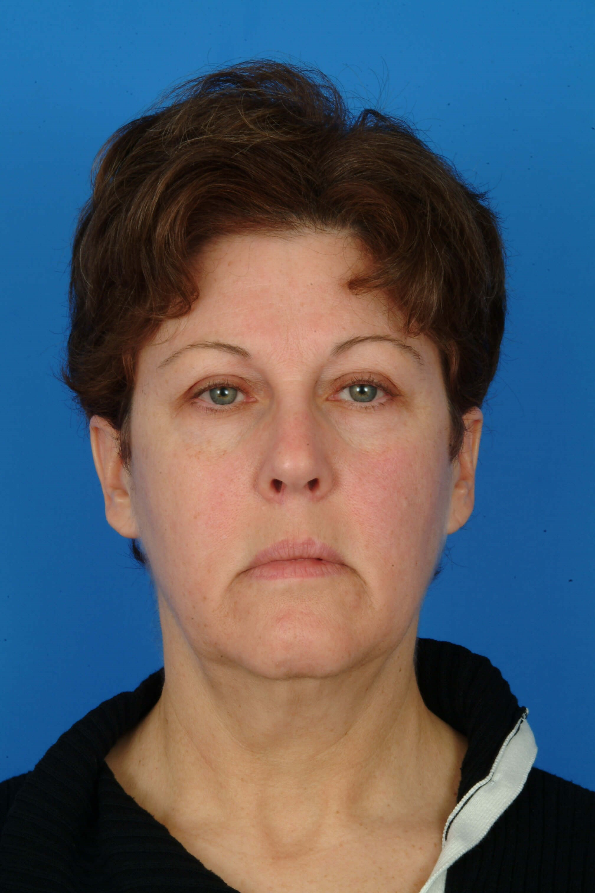 Front View Before: Facelift & Eyelids