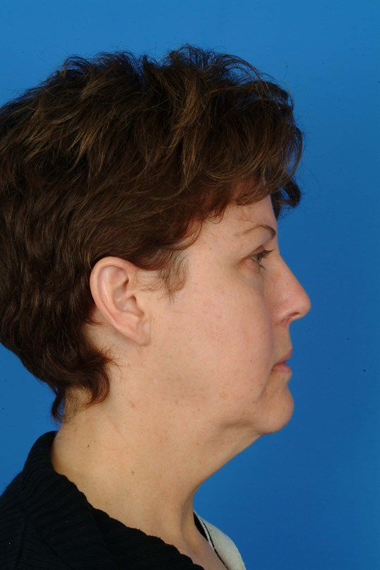 Side View Before: Facelift, Eyelids