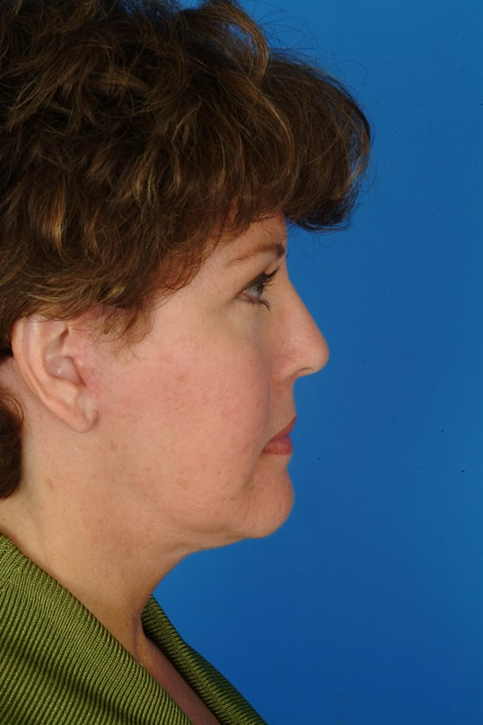 Side View 3 mos Post Facelift, Eyelids