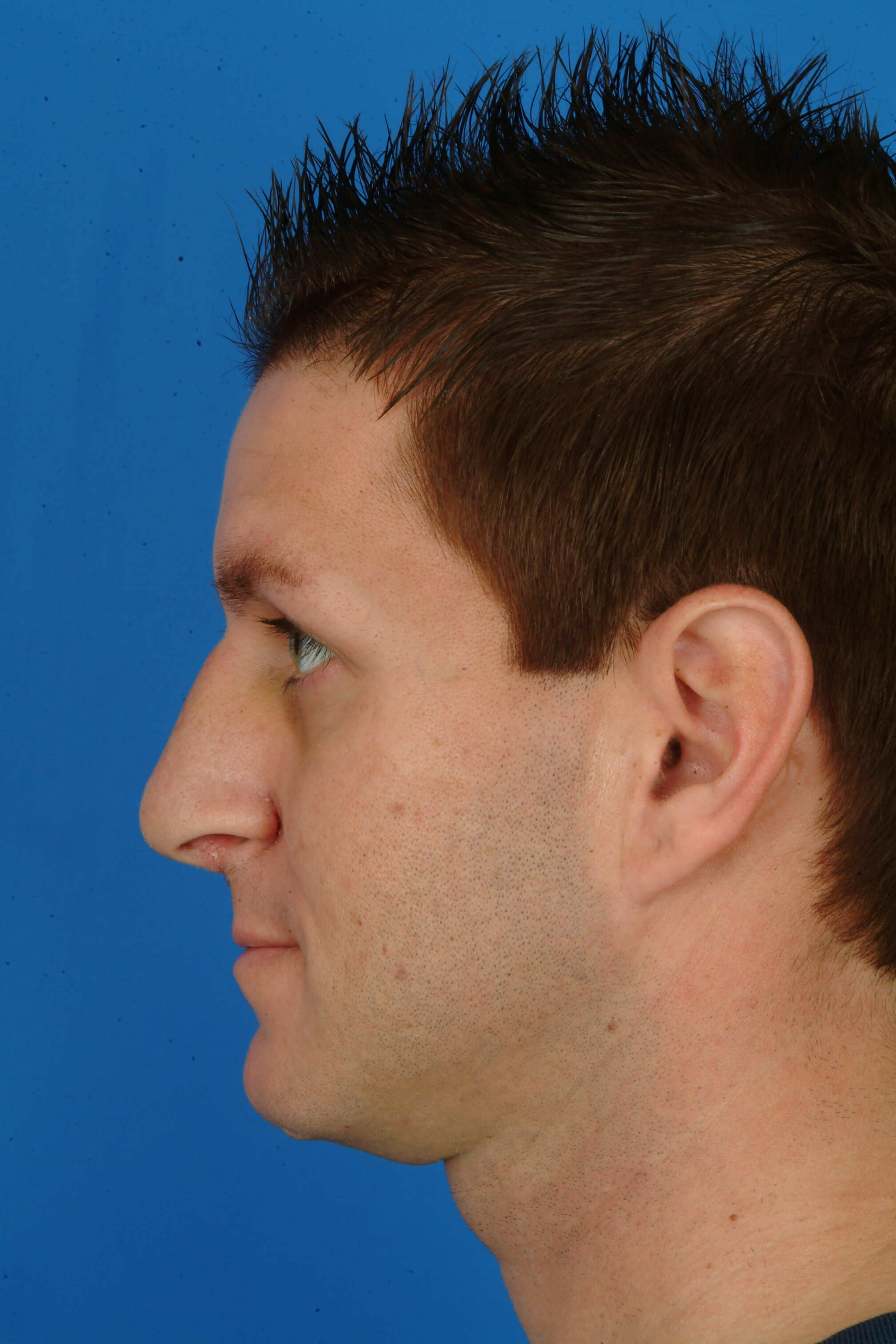 Side View 2 wks Post-Op Rhinoplasty