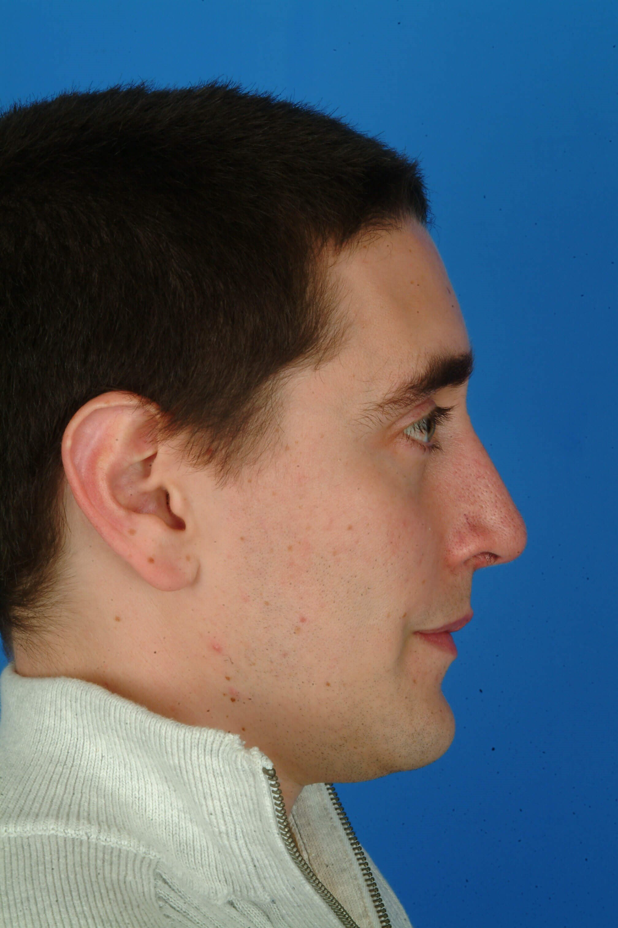 Side View 3 mo Post-op Rhinoplasty