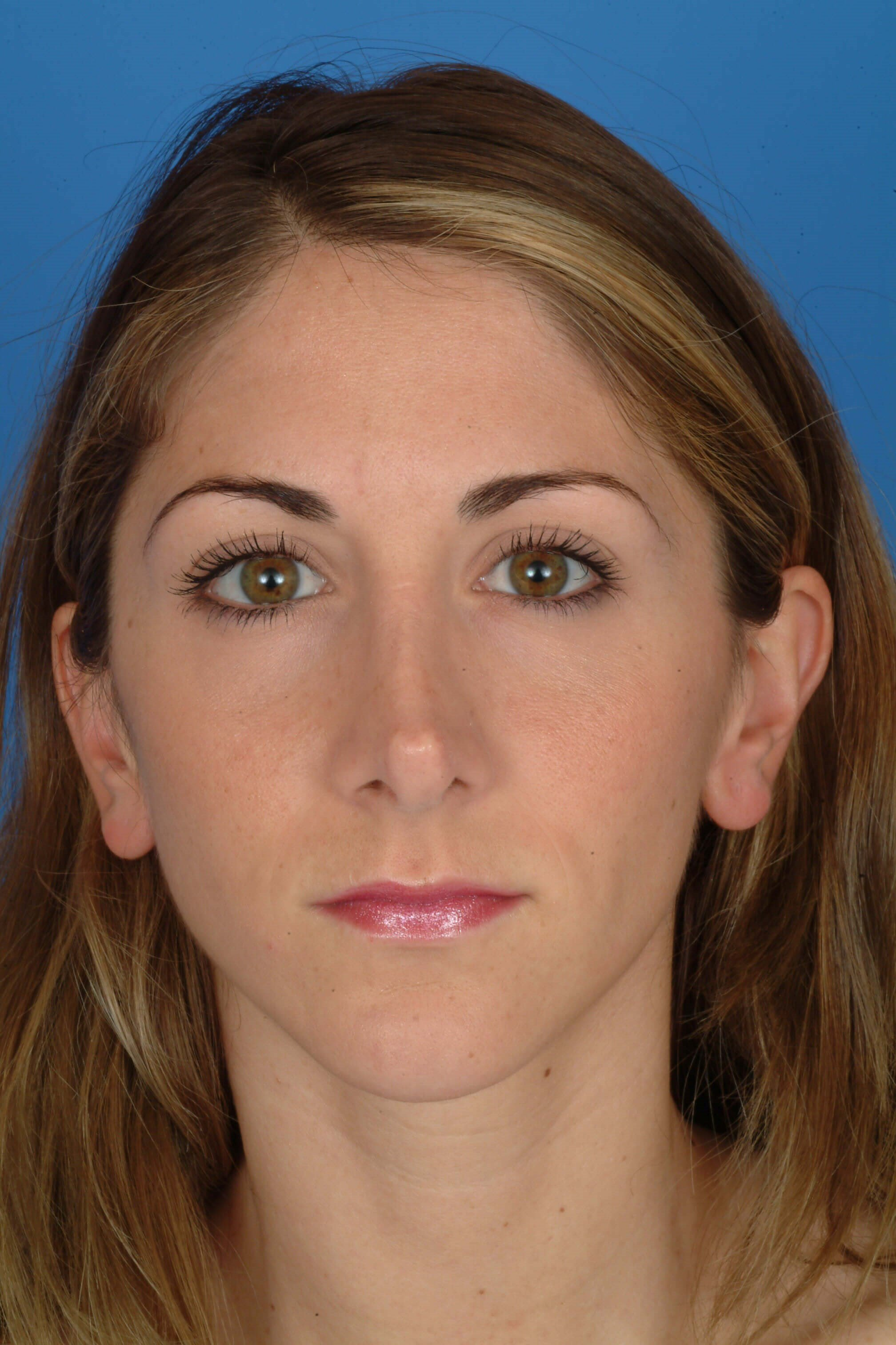 Front View Before: Revision Rhinoplasty
