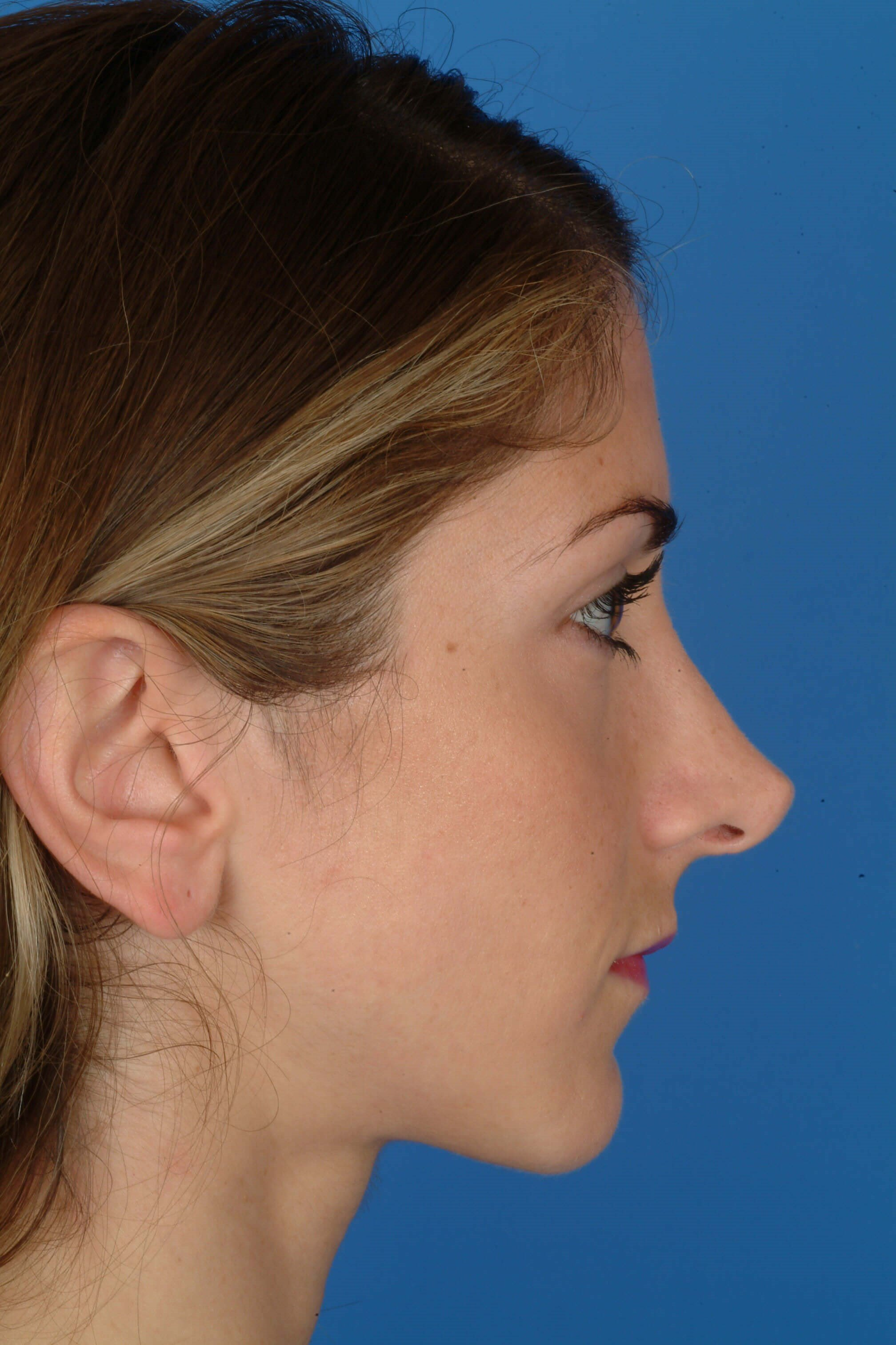 Side View Before: Revision Rhinoplasty