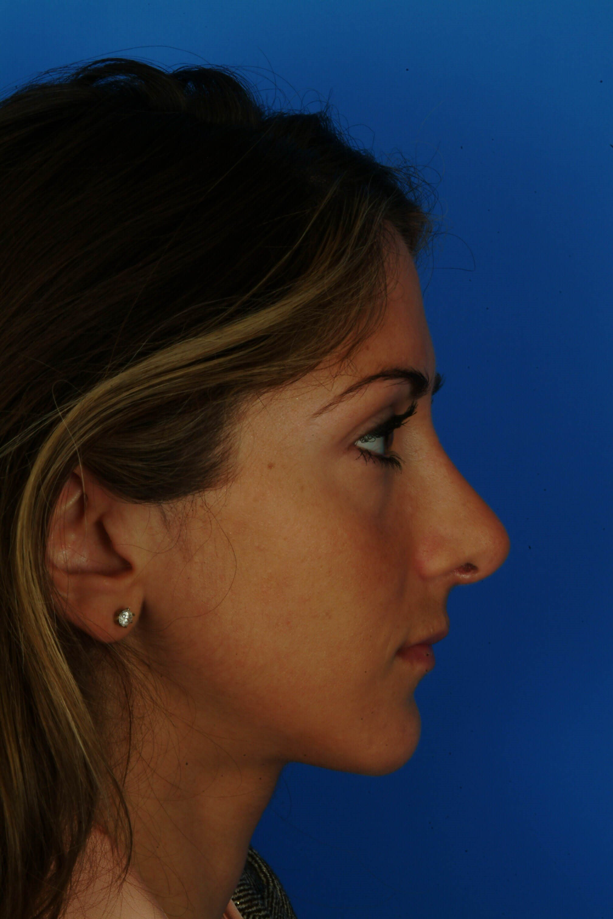 Side View 4 mo post Revision Rhinoplasty