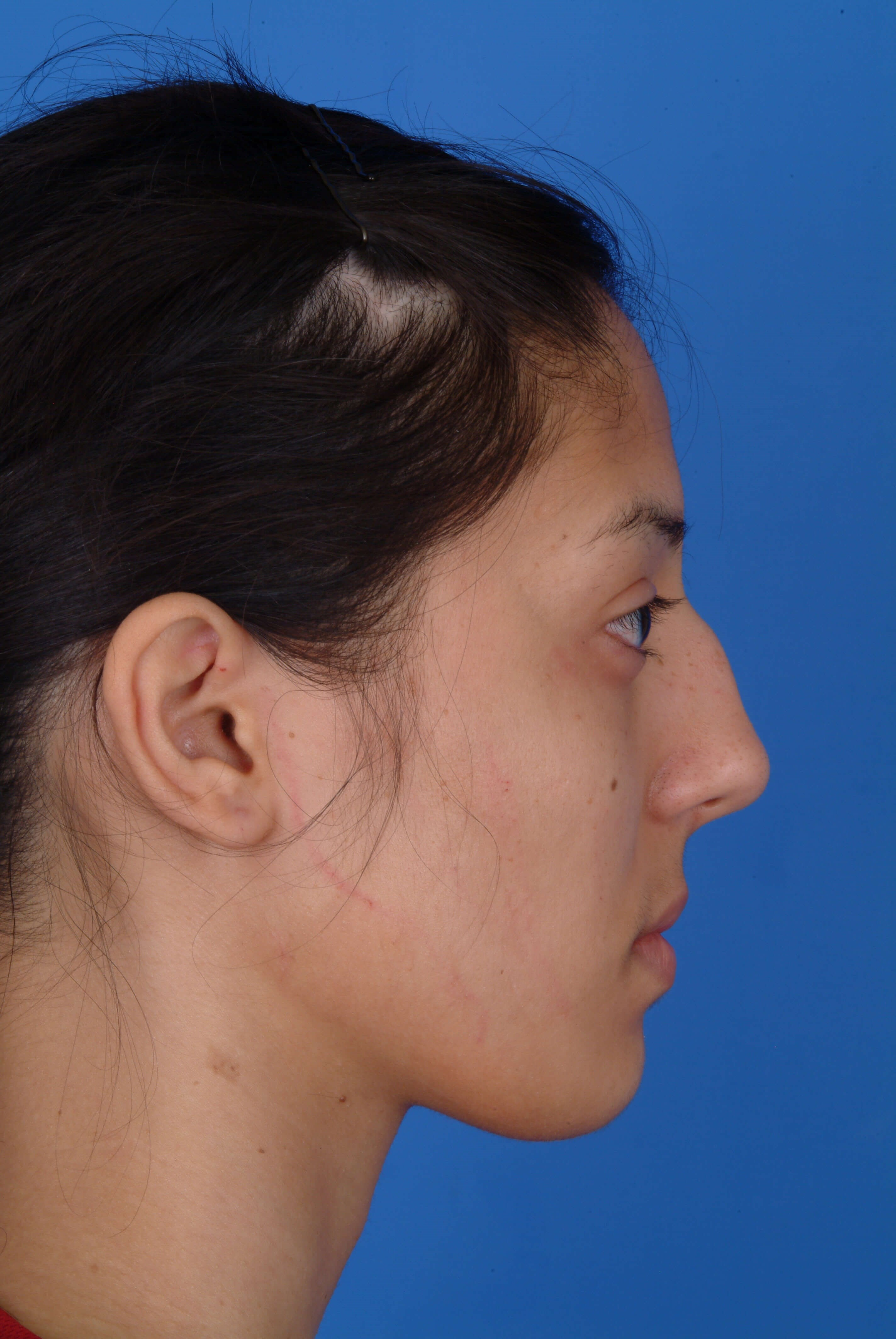 Side View Before: Rhinoplasty