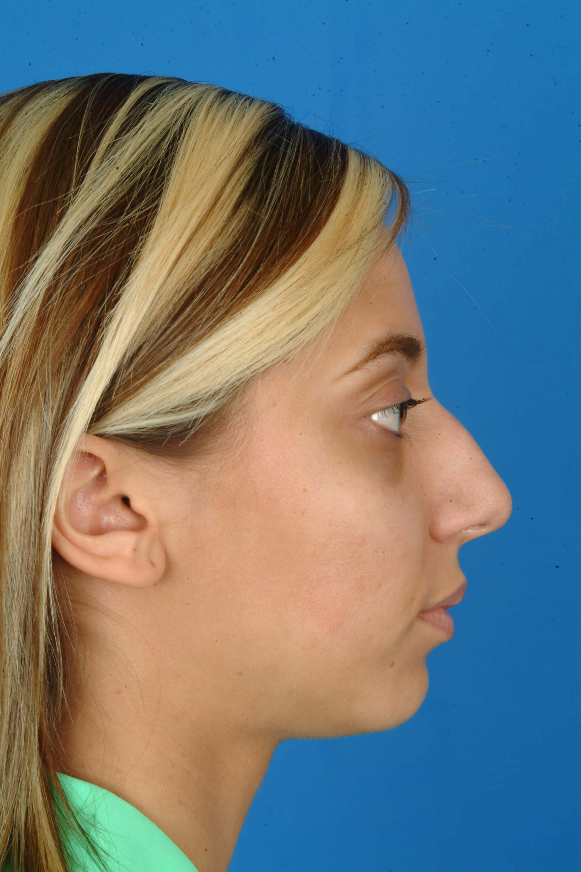 Profile View Before: Rhinoplasty