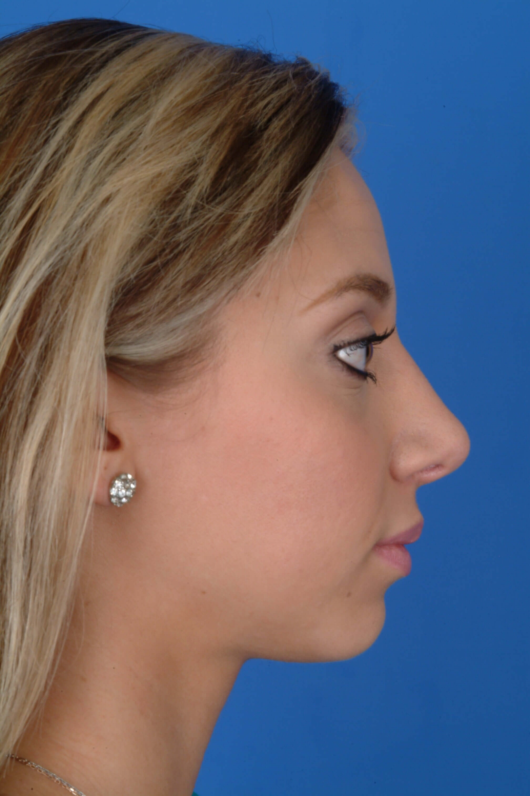 Profile View 6 months Post-Op Rhinoplasty