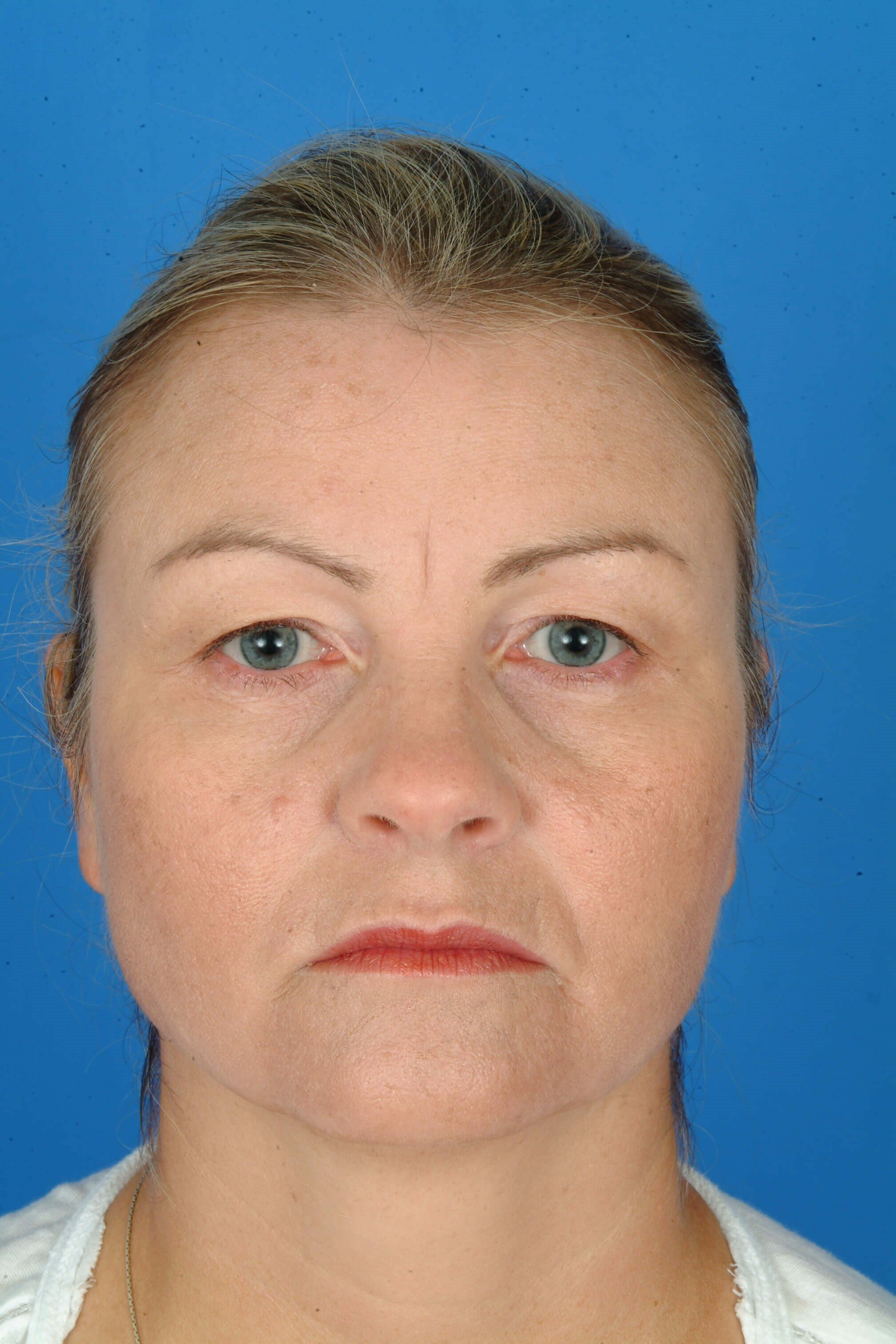 Front View Before: Upper Blepharoplasty