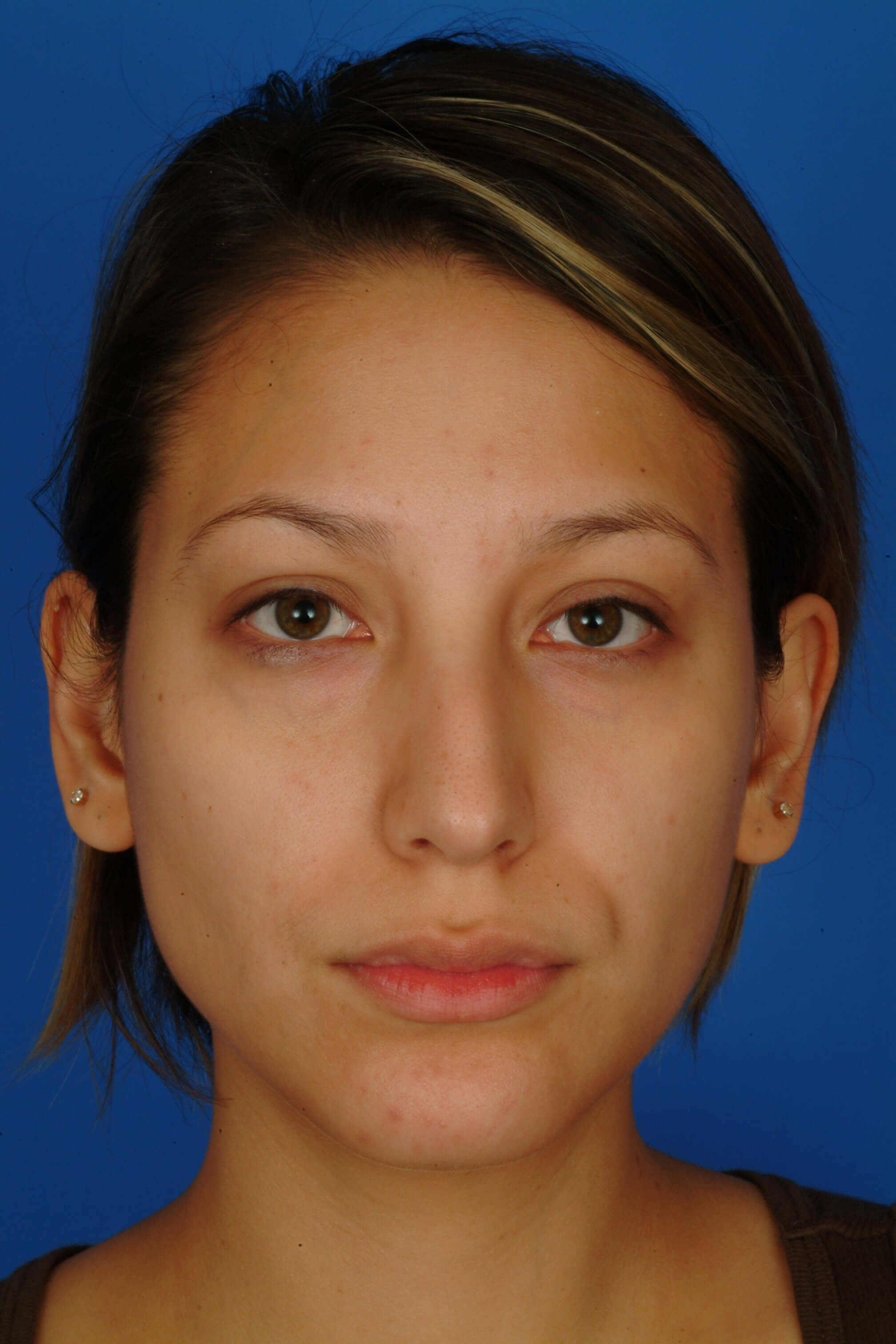 Front View Before: Rhinoplasty