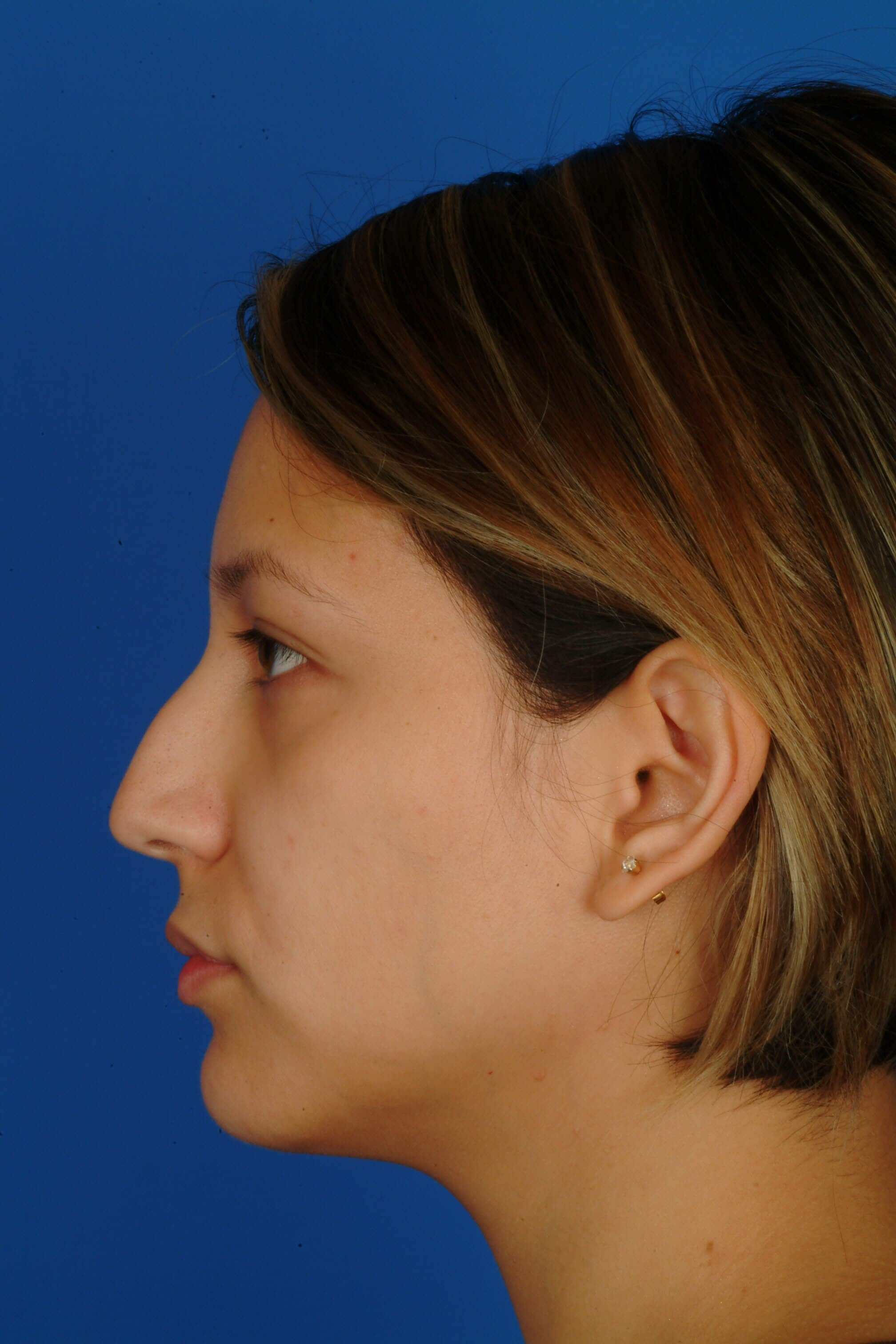 Profile View Before Rhinoplasty
