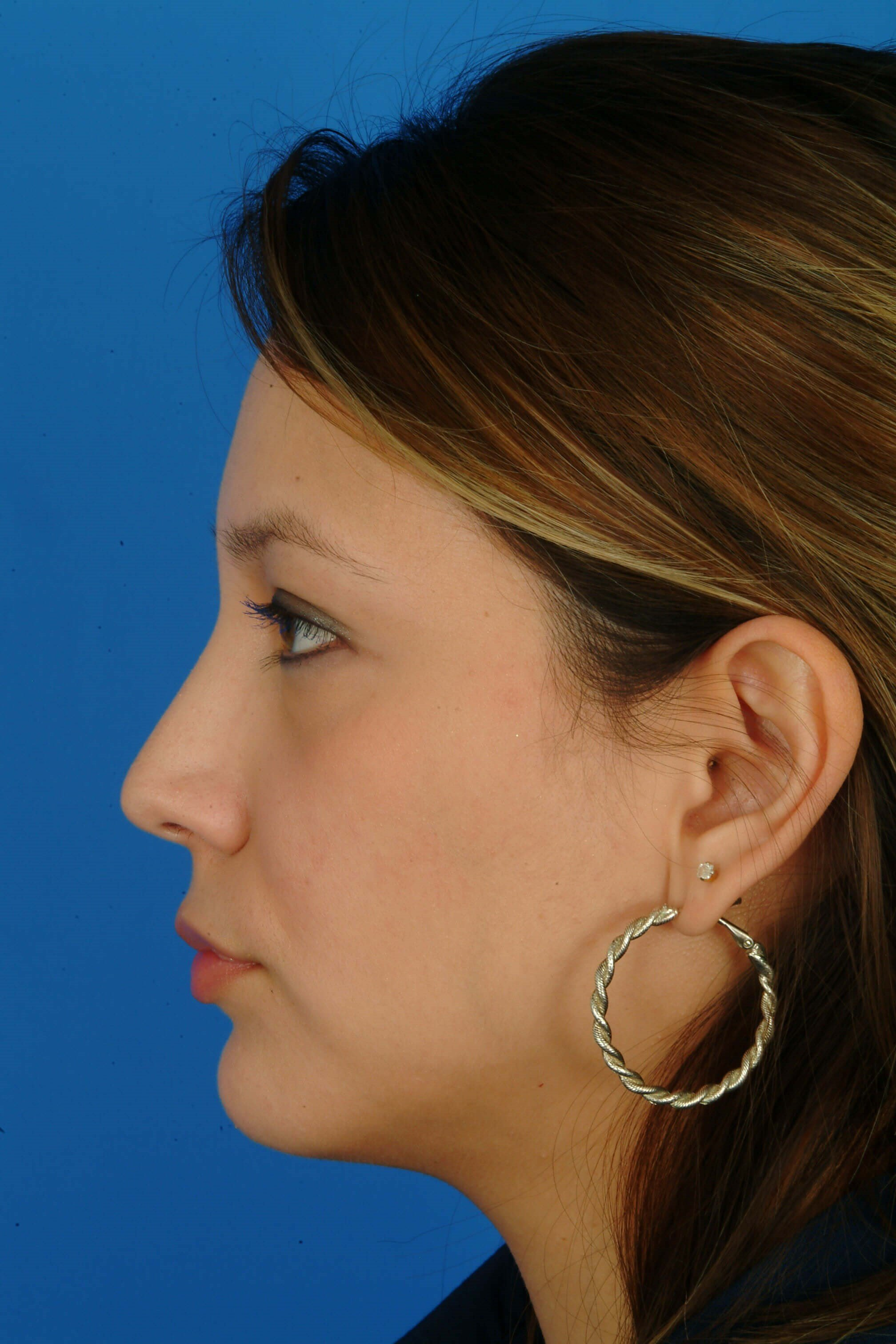 Profile View 8 mo Post-Op Rhinoplasty