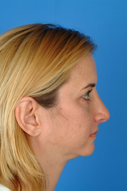 Side View 4 mo Post-Op Rhinoplasty