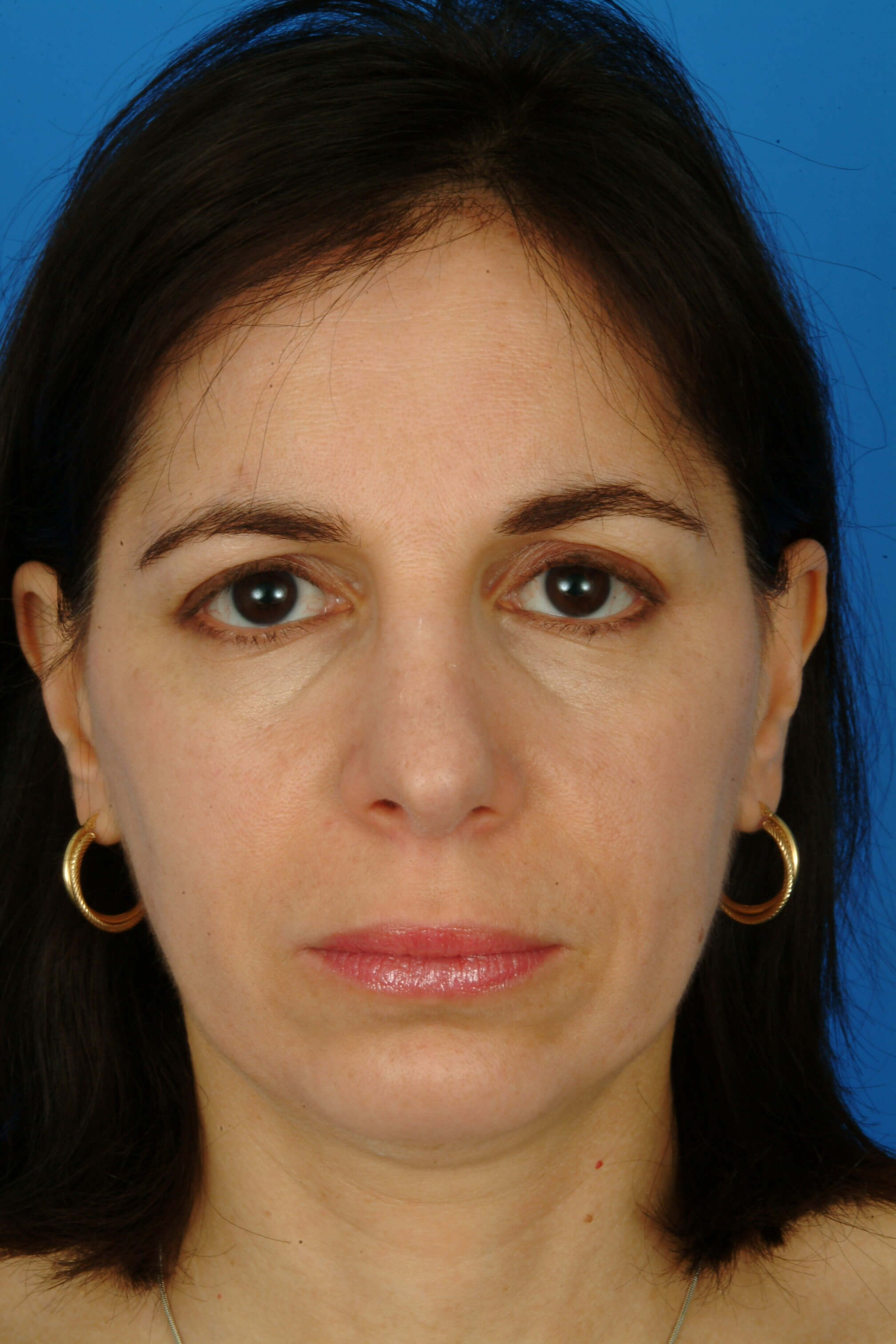 Front View 3 Months After Rhinoplasty