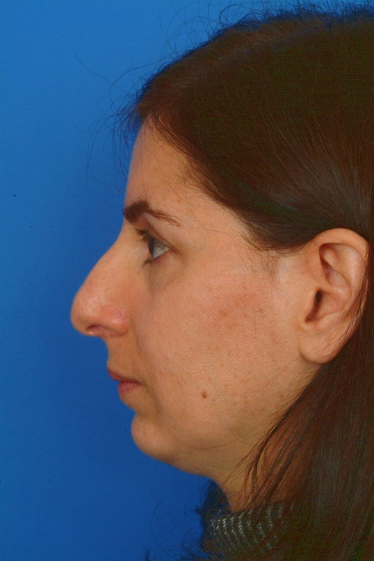 Profile View Before: Ethnic Rhinoplasty