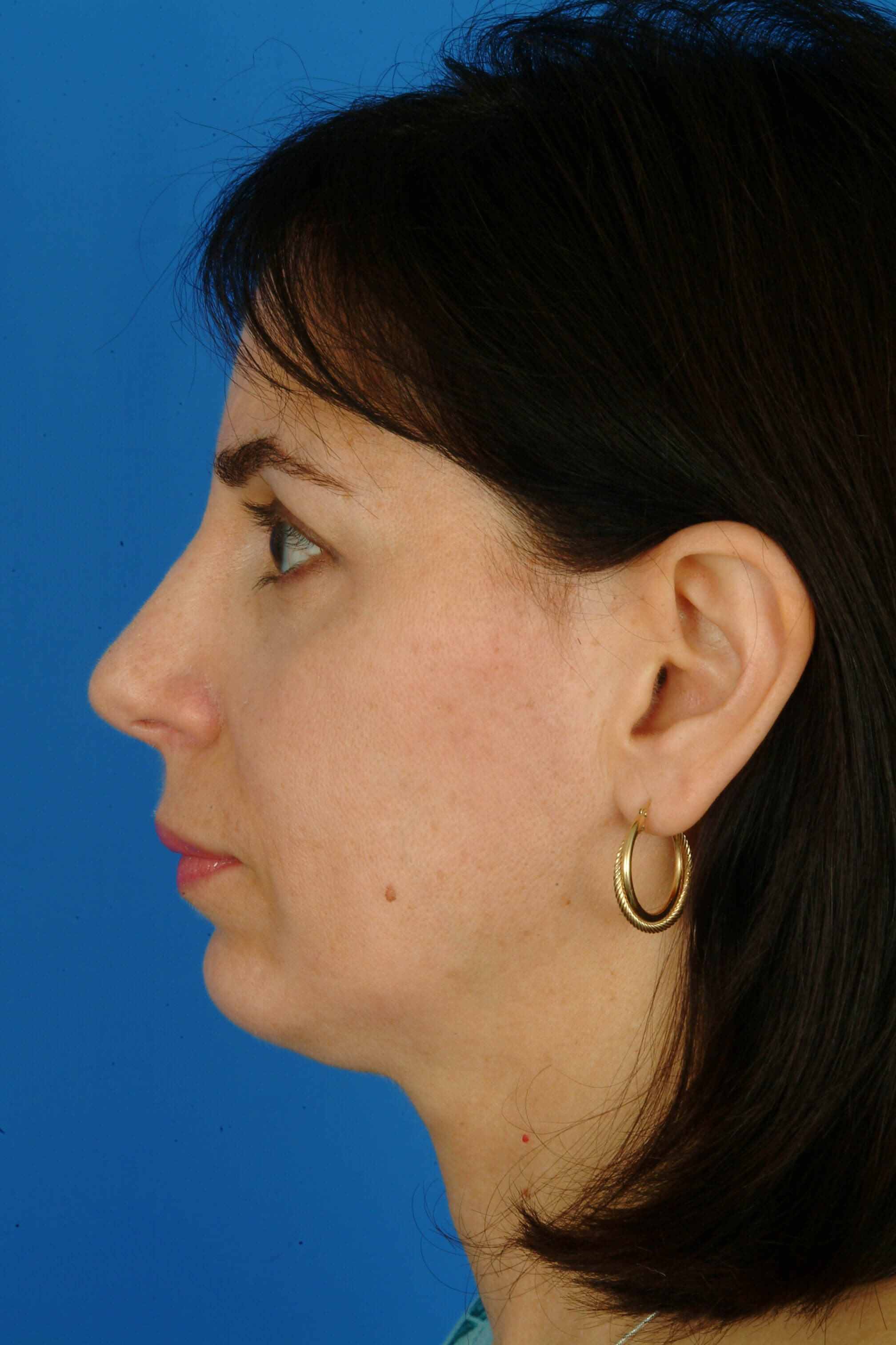 Profile View 3 Months After Rhinoplasty