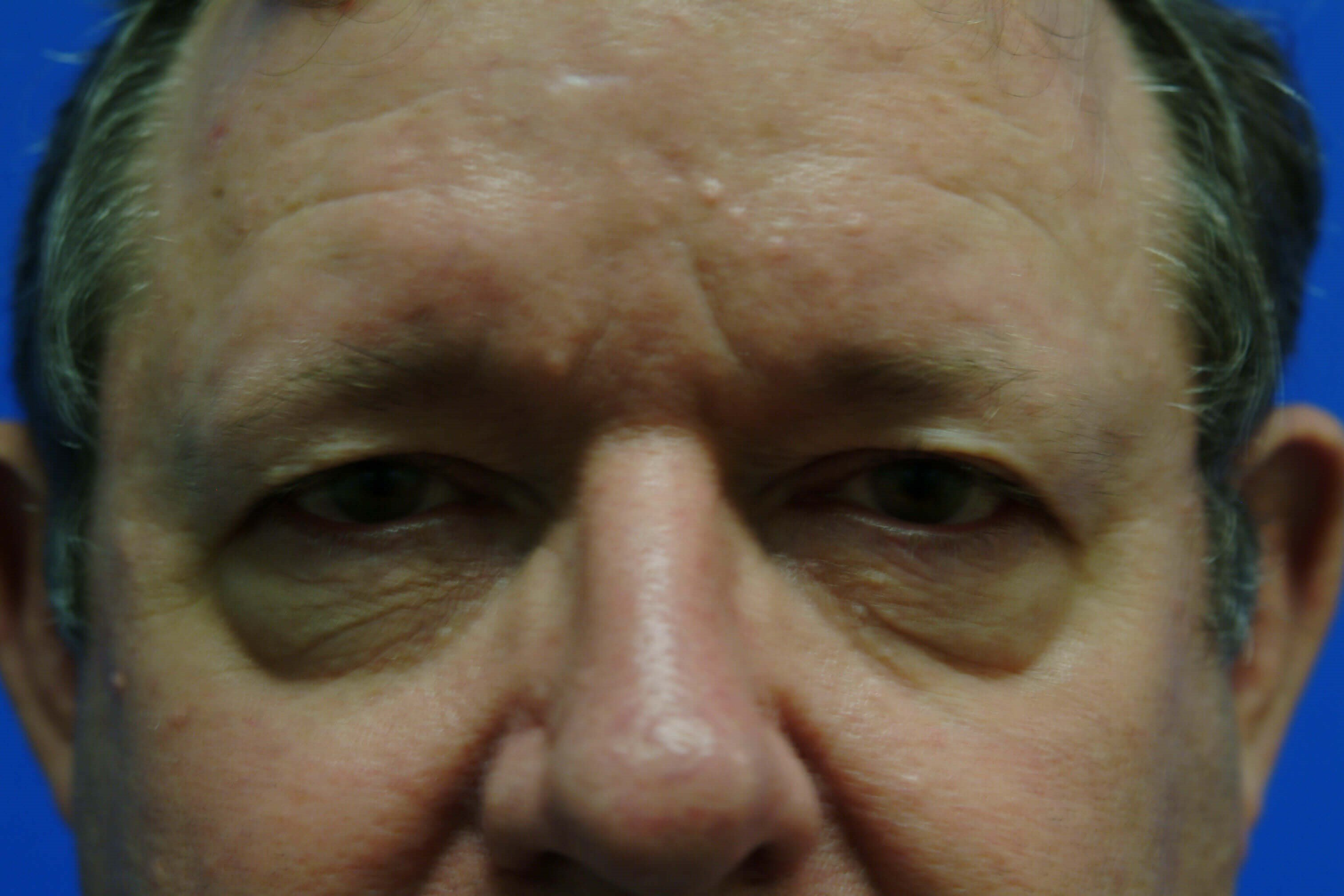 Close-up (no flash) Before: Blepharoplasty