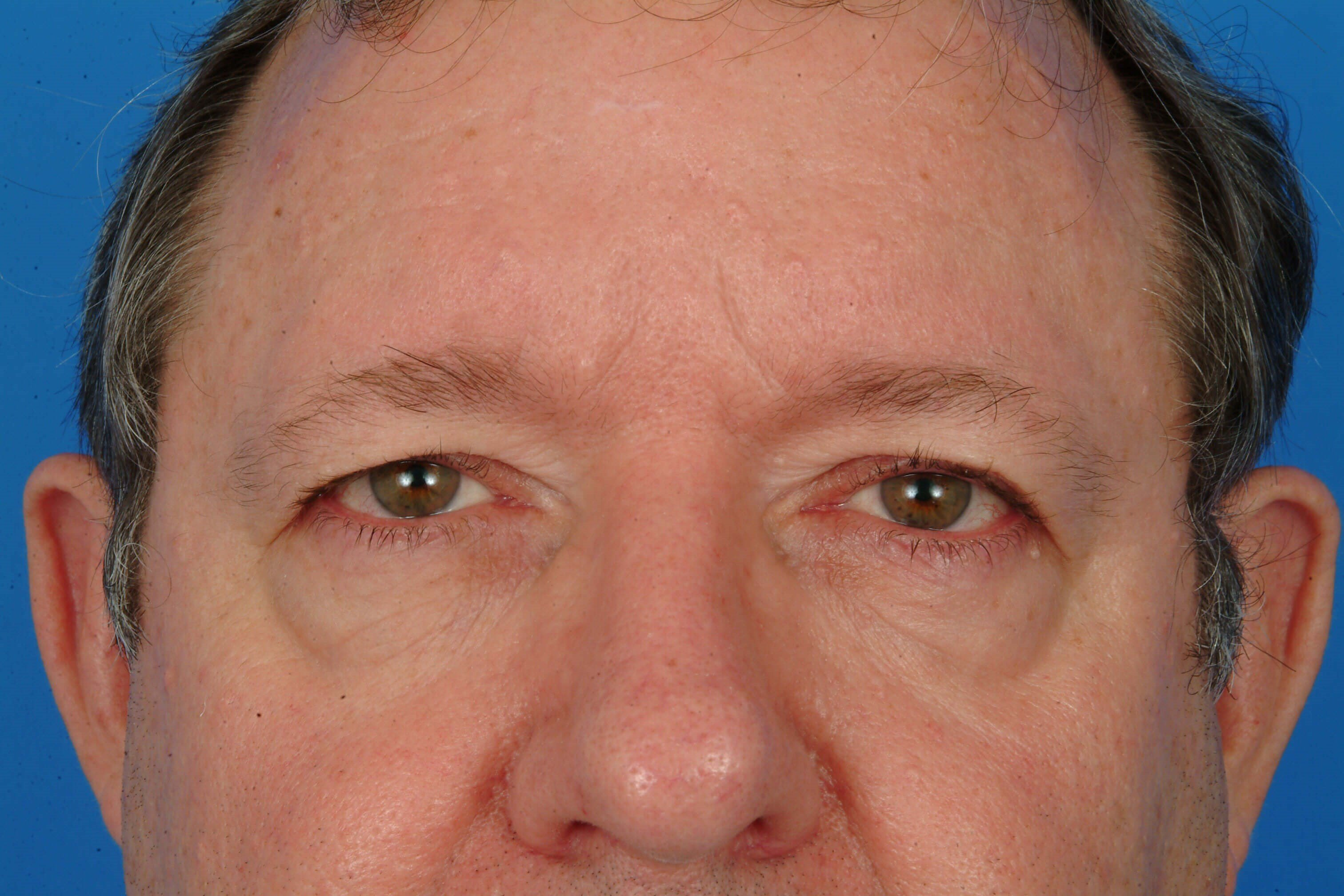 Close-up (flash) Before: Blepharoplasty