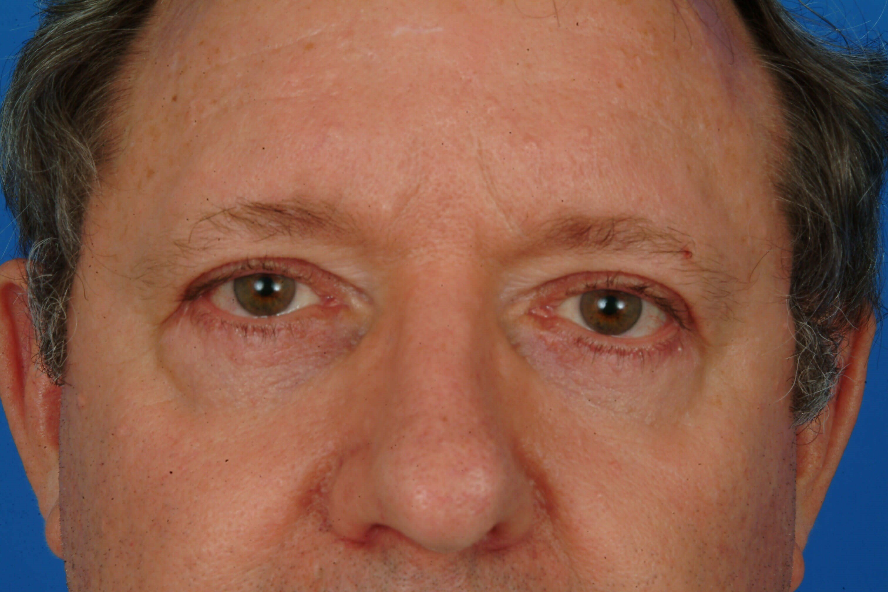 Close-up (flash) After Bilateral Blepharoplasty