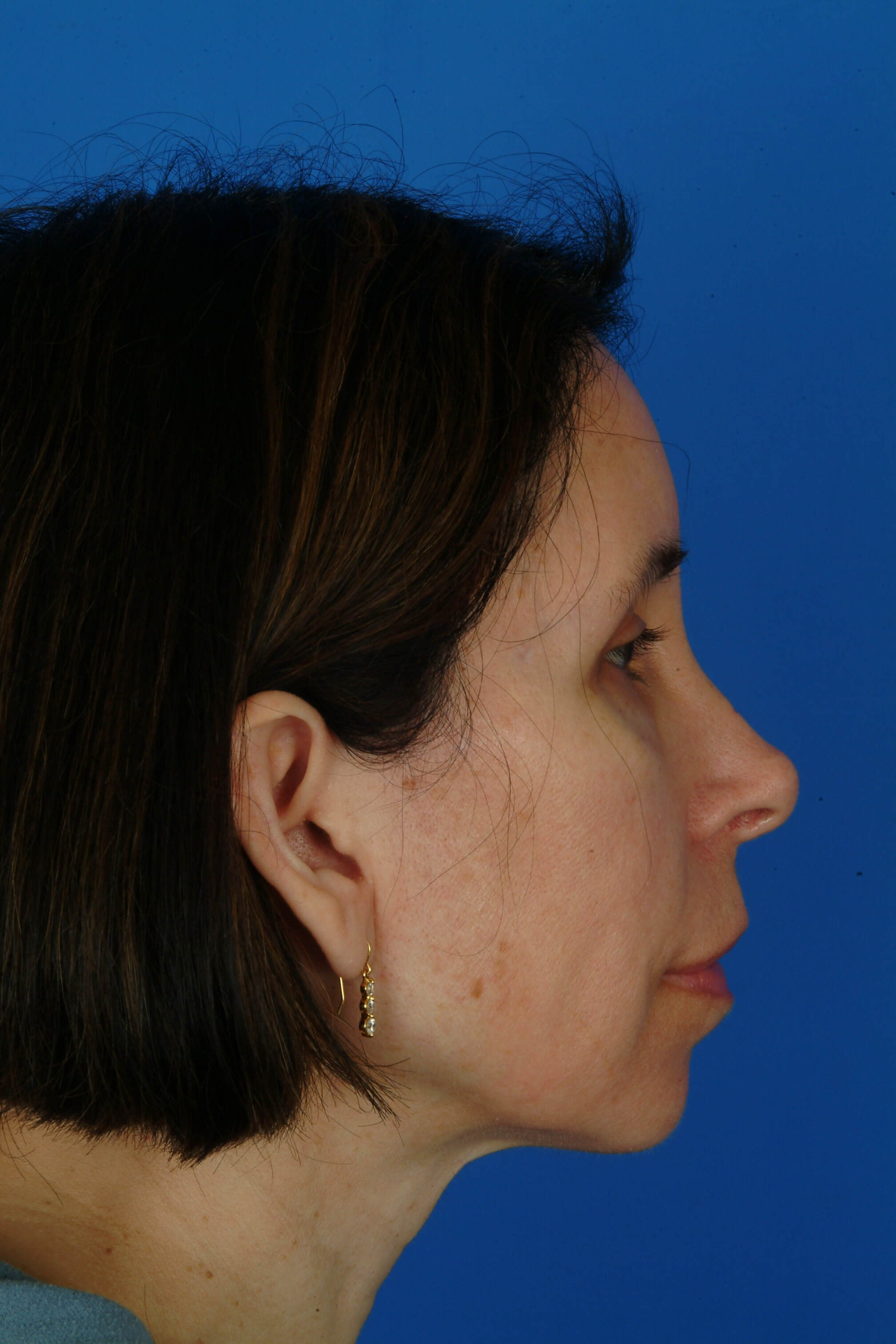 Side View After: 5 mo Post-Op Browlift