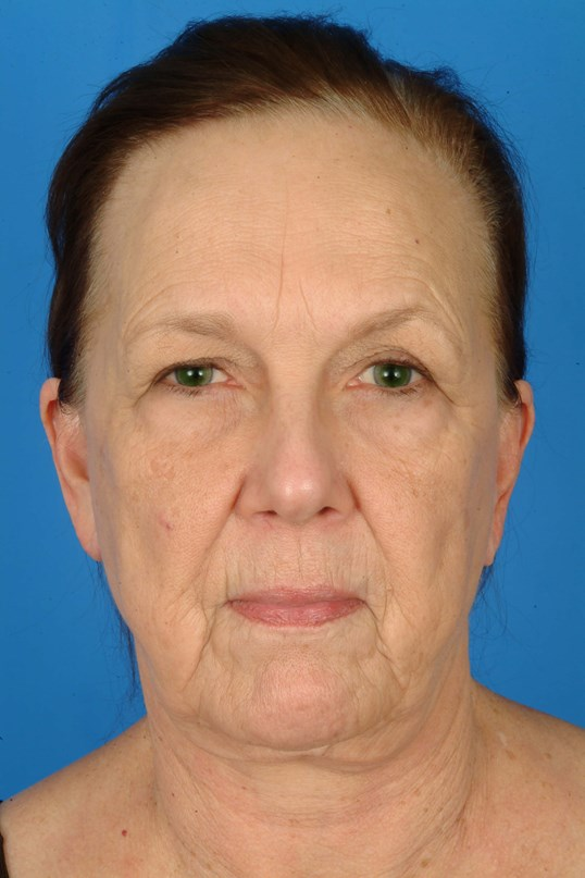 Front View Before: Facelift,browlift, eye