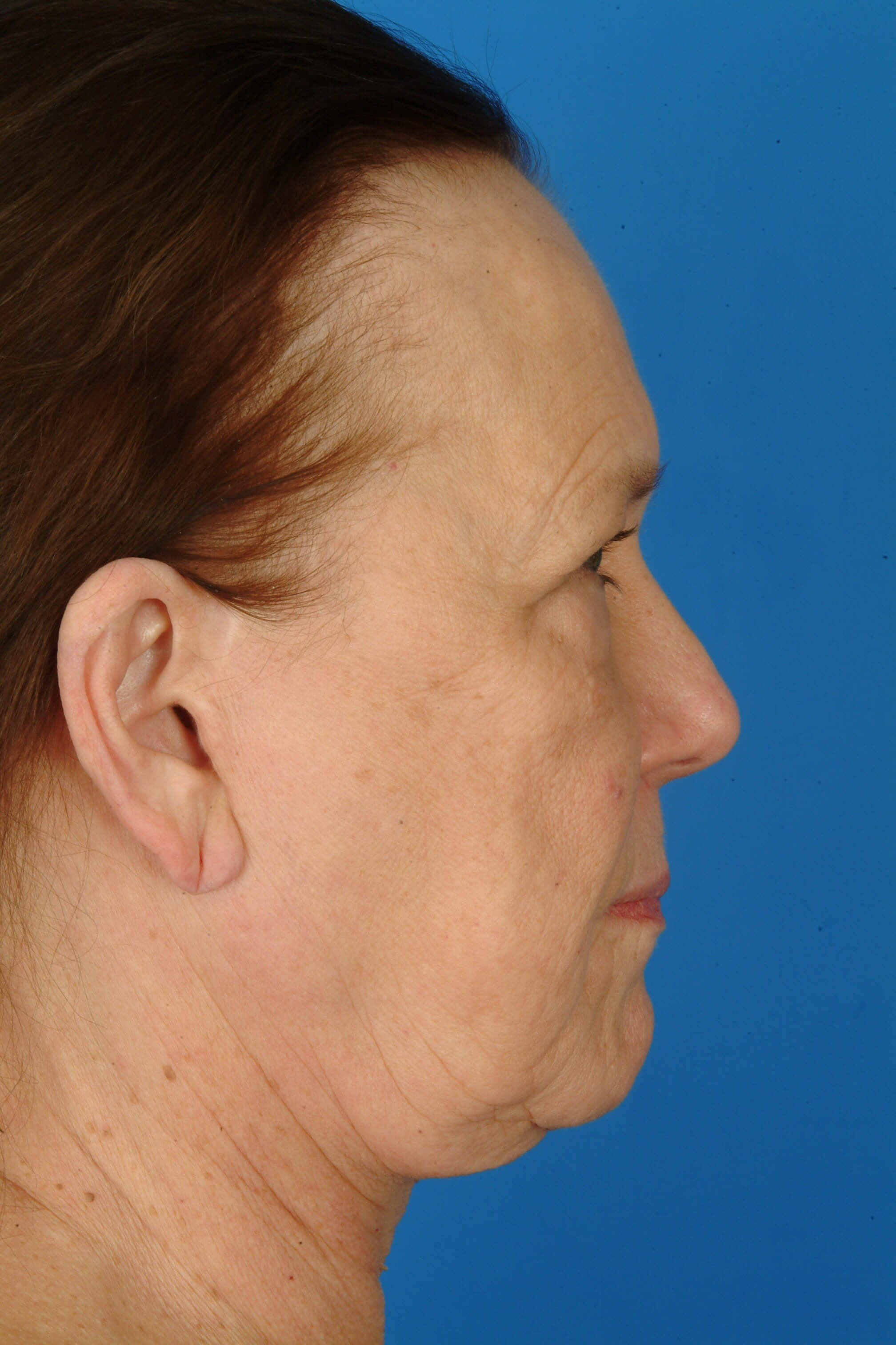 Side View Before: Facelift,Browlift,Eyes