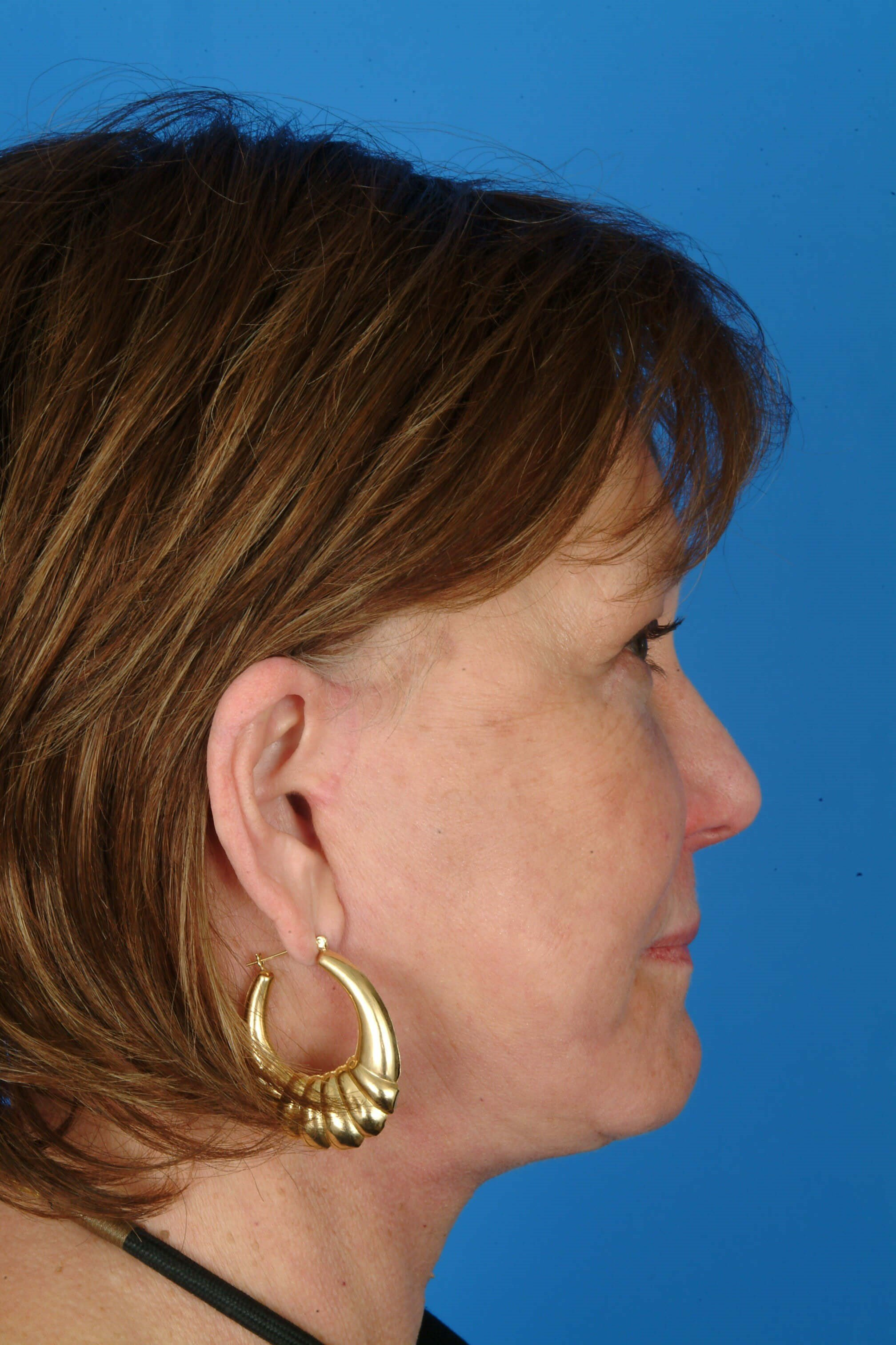 Side View 3 mos After Facelift, Browlift