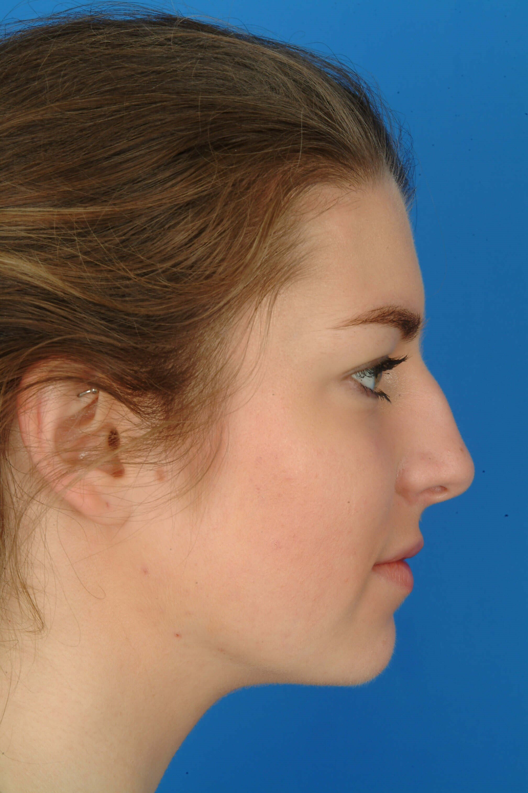 SIde View Before: Rhinoplasty & Septopla