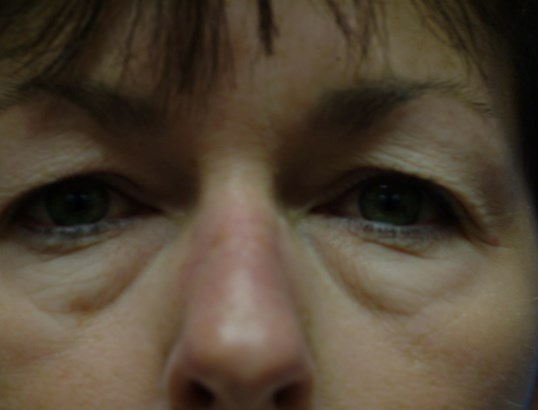 Front View Before: Upper and Lower Eyelid