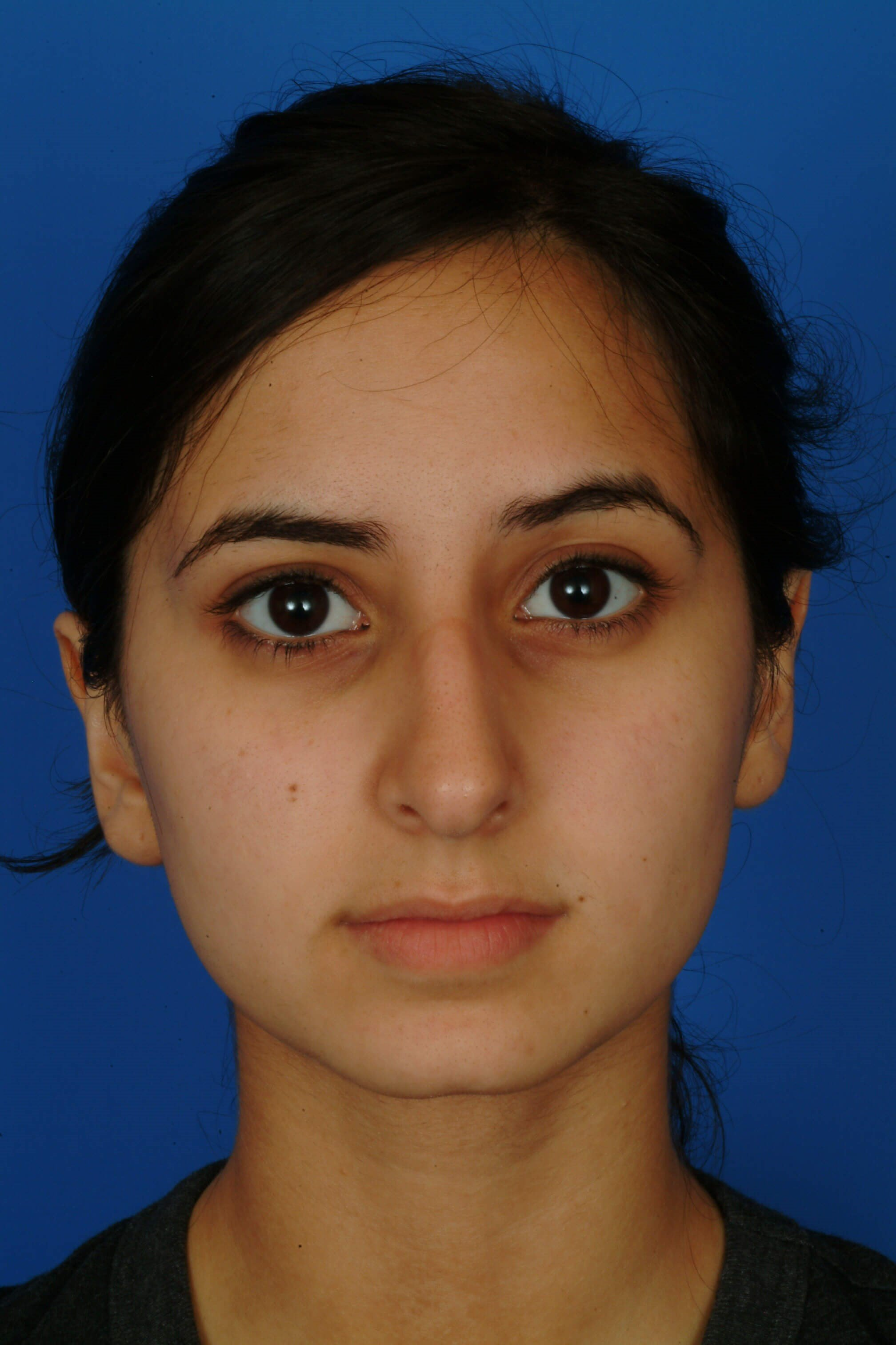 Front View Before Ethnic Rhinoplasty