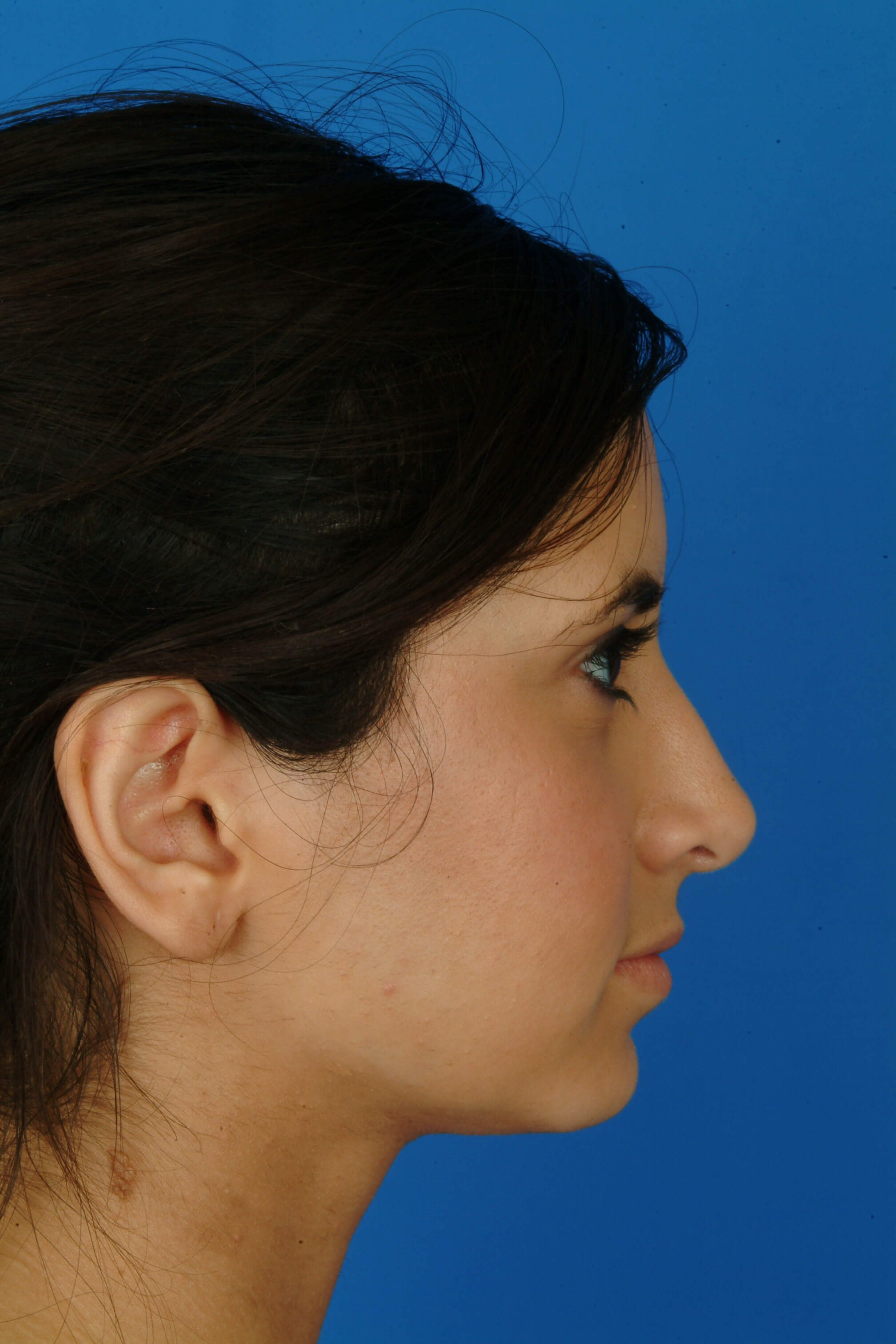 Profile View After Rhinoplasty (9 months)