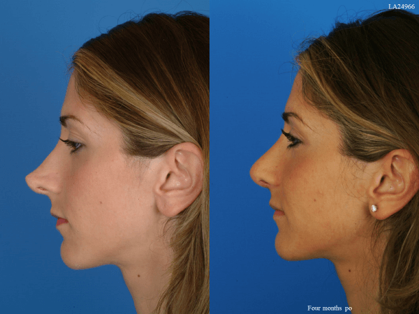 What To Look For In A Revision Rhinoplasty Specialist Near You
