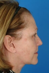 Dr. Kridel patient profile after facelift surgery