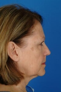 Dr. Kridel patient before facelift